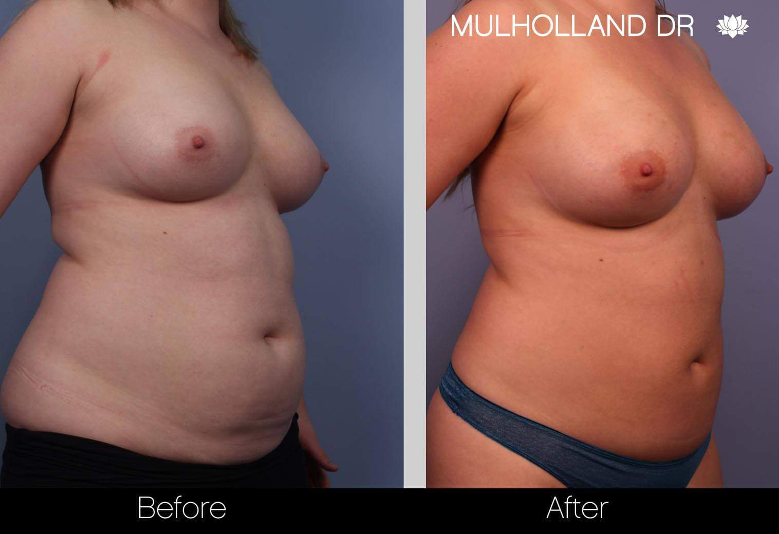 Fat Transfer Breast Augmentation - Before and After Gallery - Patient Photo 4