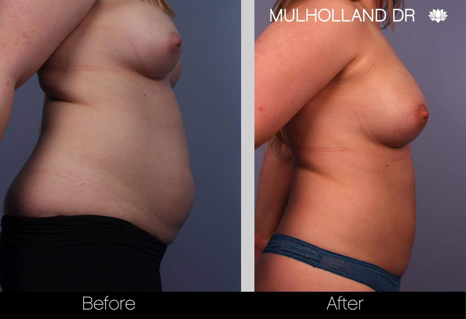 Fat Transfer Breast Augmentation - Before and After Gallery - Patient Photo 5