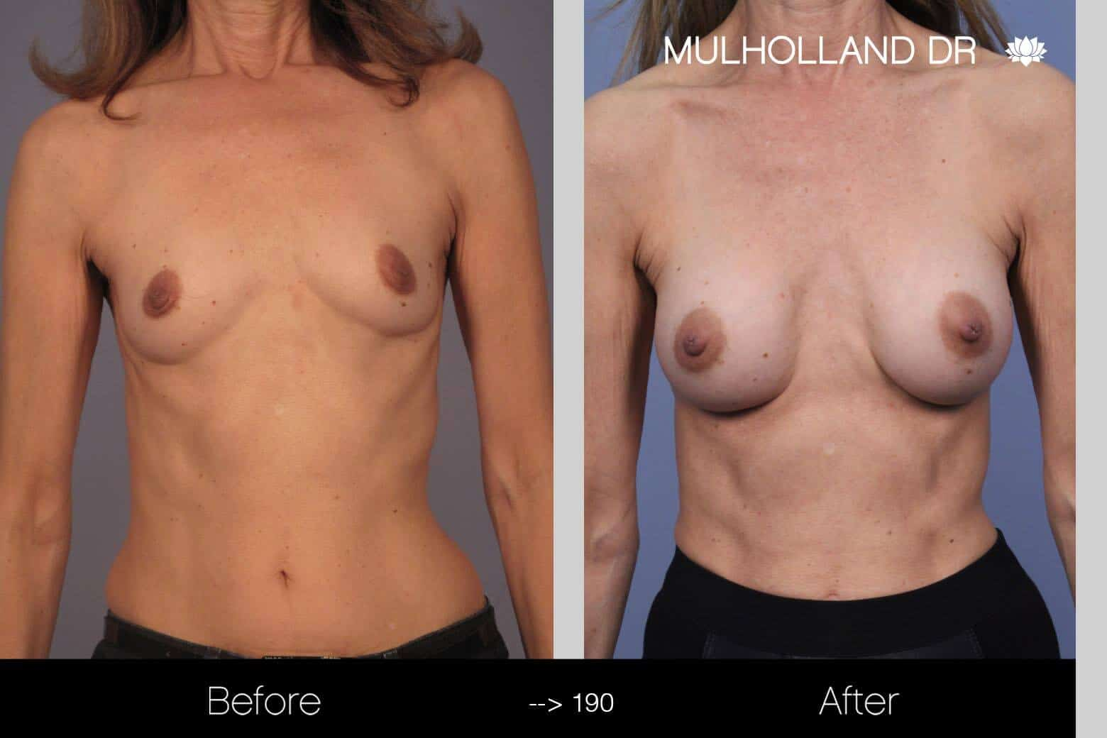 Fat Transfer Breast Augmentation - Before and After Gallery - Patient Photo 6