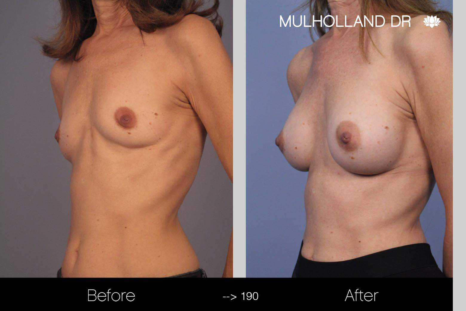 Fat Transfer Breast Augmentation - Before and After Gallery - Patient Photo 7
