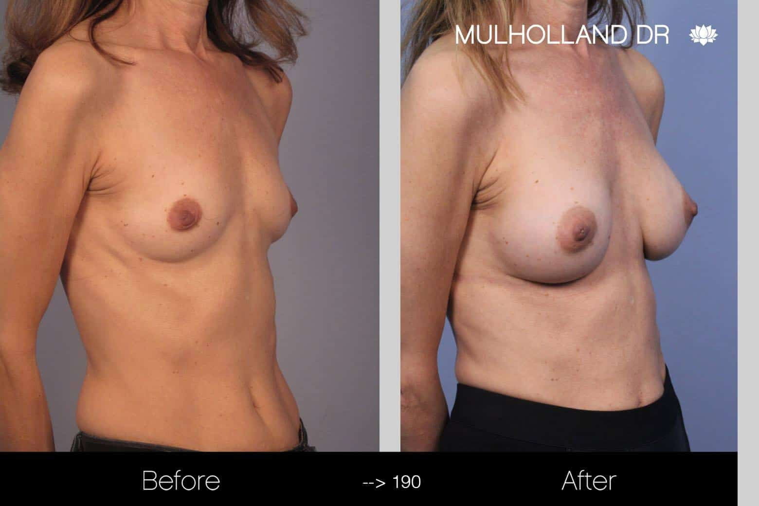 Fat Transfer Breast Augmentation - Before and After Gallery - Patient Photo 9