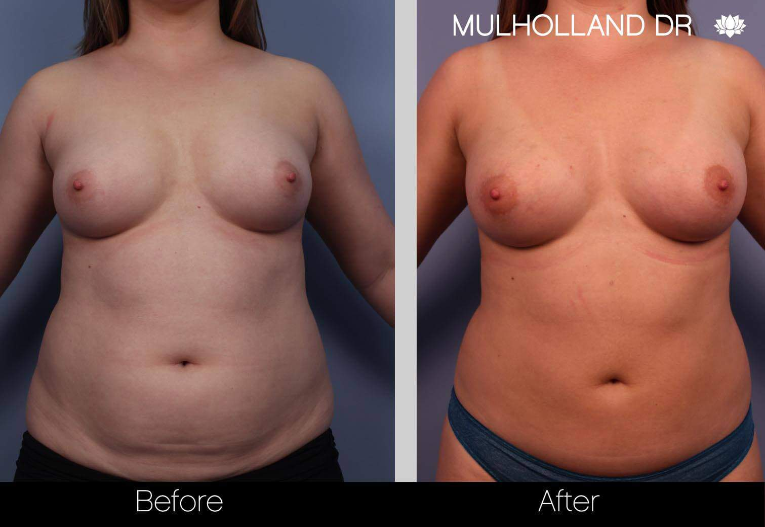 Fat Transfer Breast Augmentation - Before and After Gallery - Patient Photo