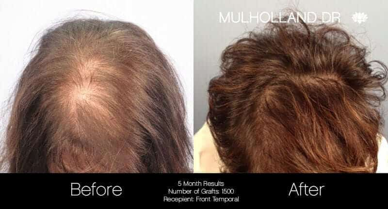 Female Hair Transplant - Before and After Gallery - Patient Photo 1