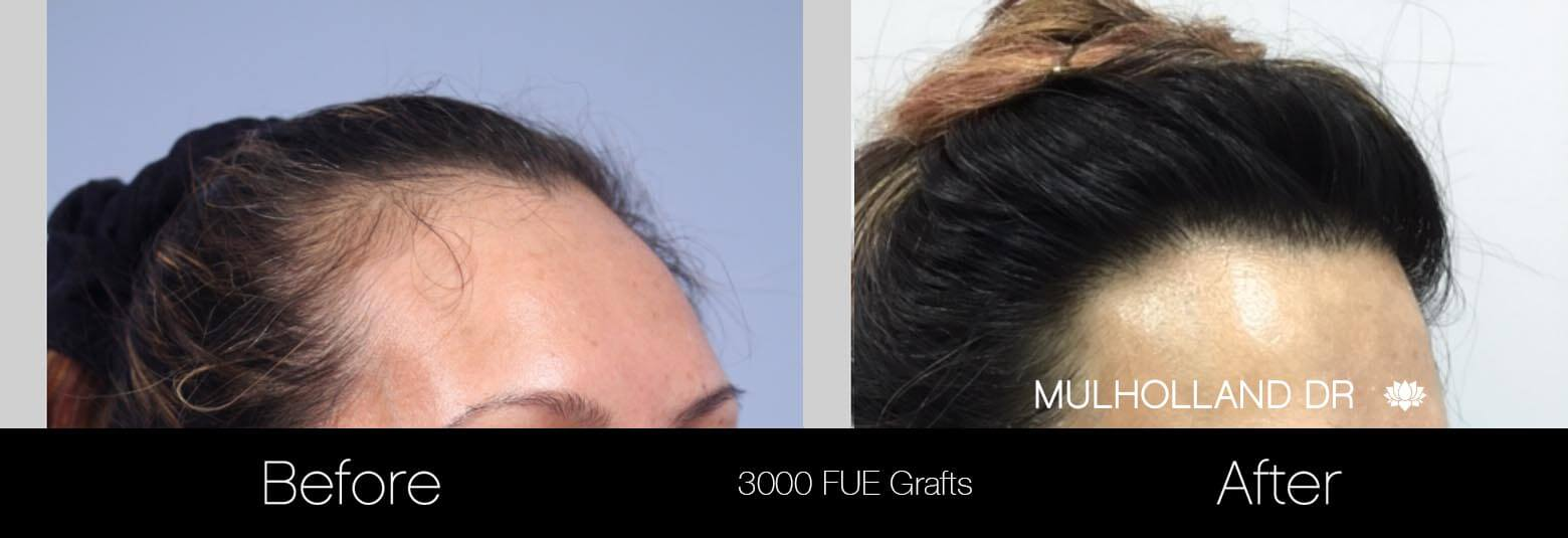 Female Hair Transplant - Before and After Gallery - Patient Photo 2