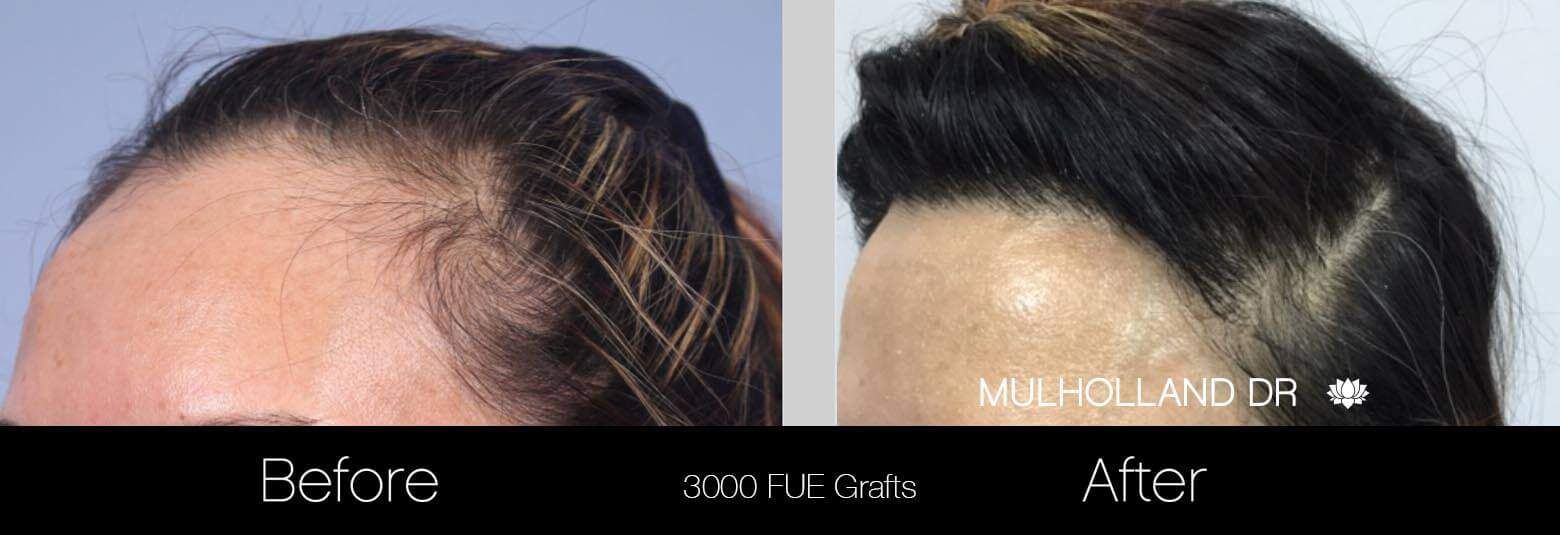 Female Hair Transplant - Before and After Gallery - Patient Photo 3