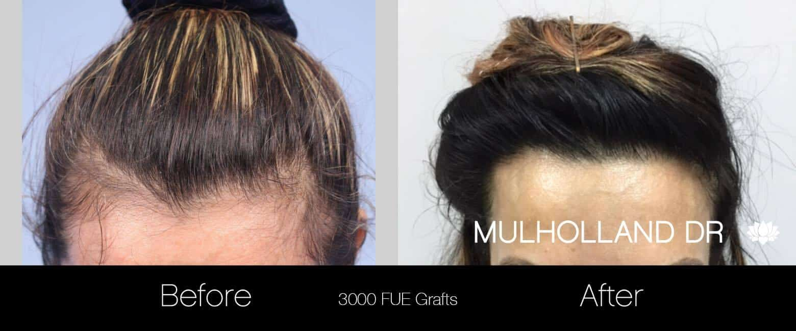 Female Hair Transplant - Before and After Gallery - Patient Photo 4