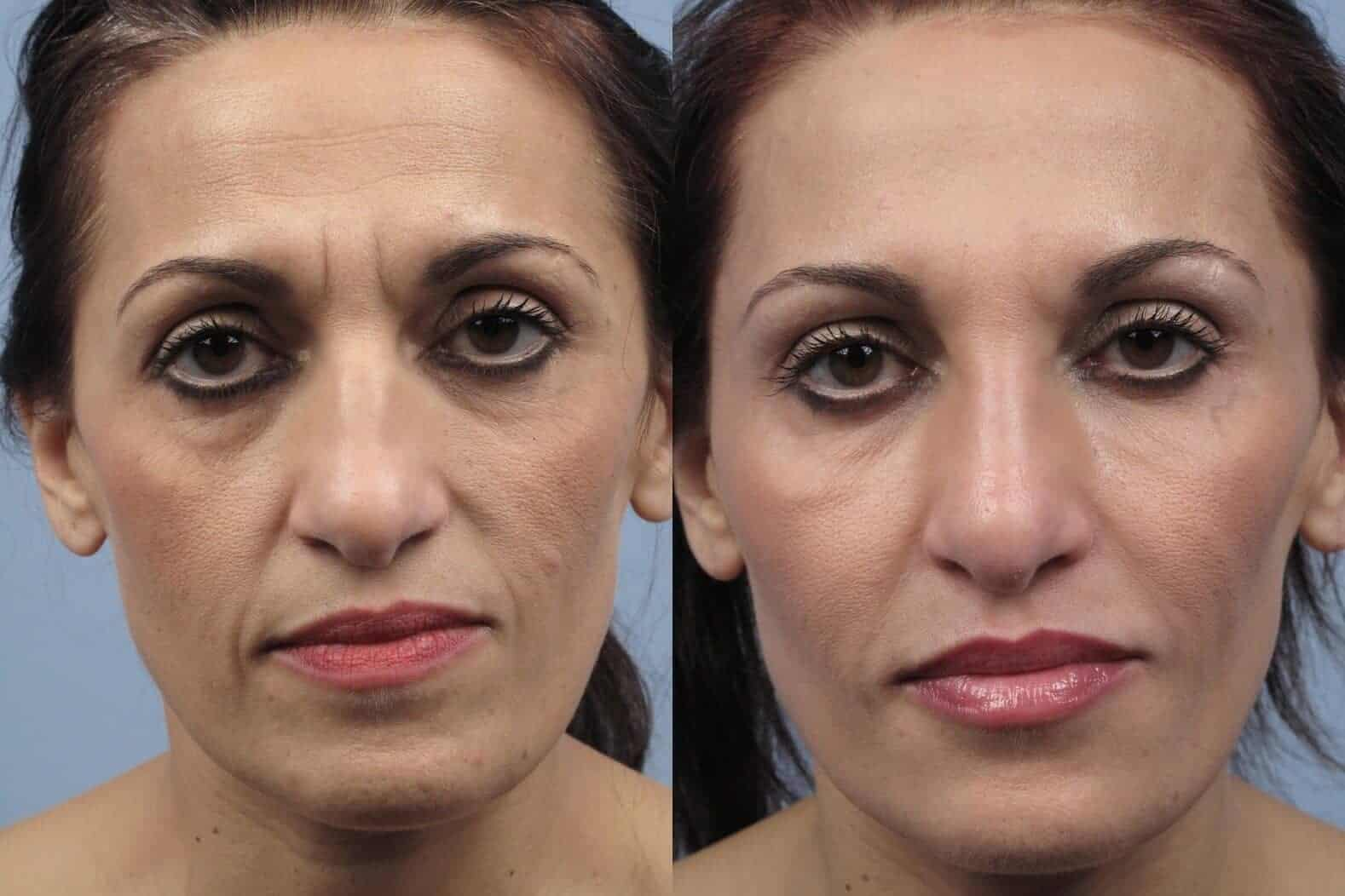 Fractional CO2 - Before and After Gallery - Patient Photo 18