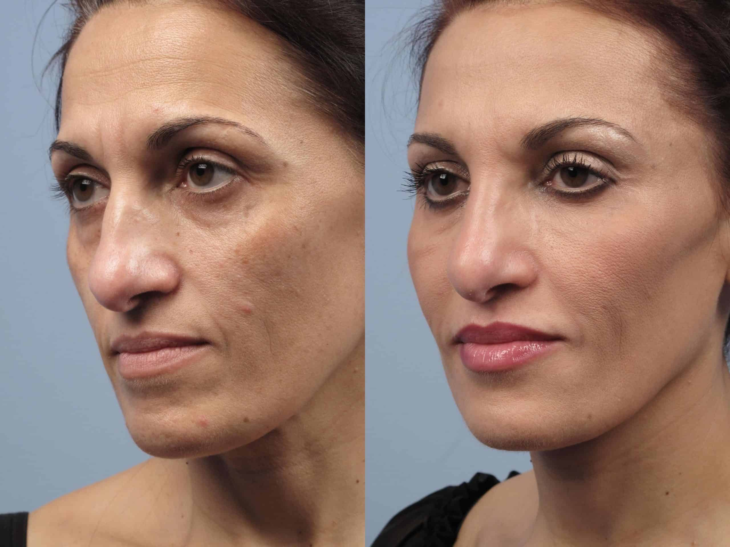 Fractional CO2 - Before and After Gallery - Patient Photo 21