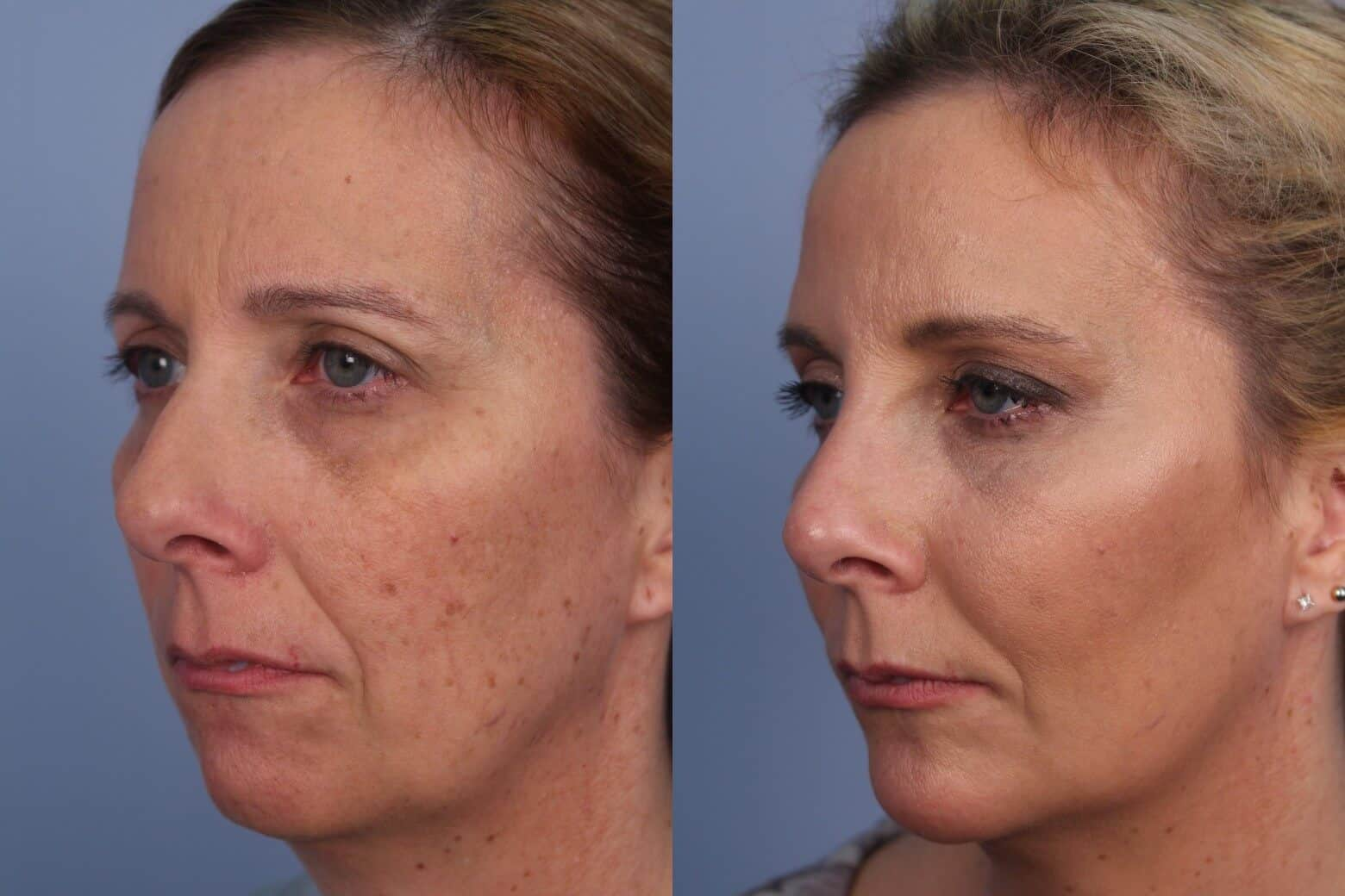 Fractional CO2 - Before and After Gallery - Patient Photo 34