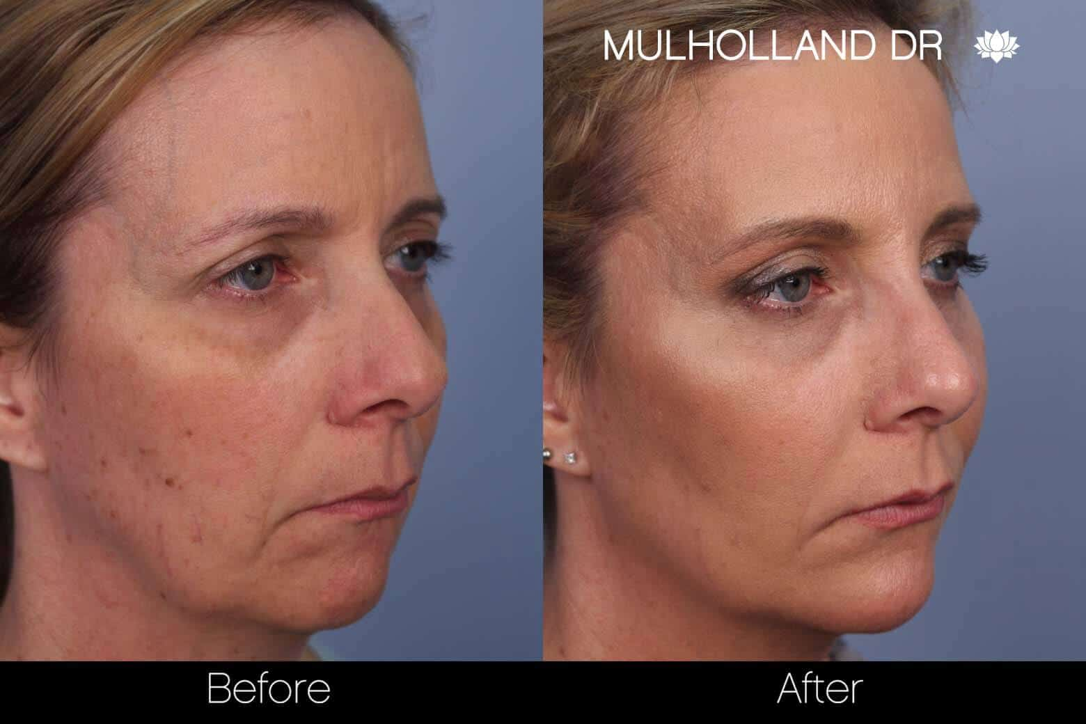 Fractional CO2 - Before and After Gallery - Patient Photo 39