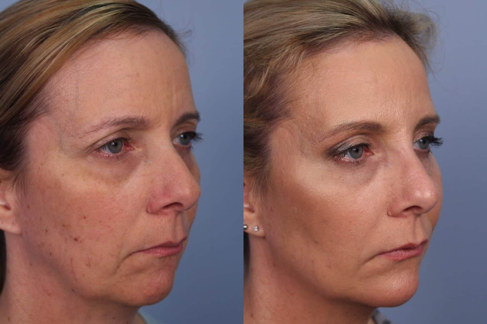 Fractional CO2 - Before and After Gallery - Patient Photo 40