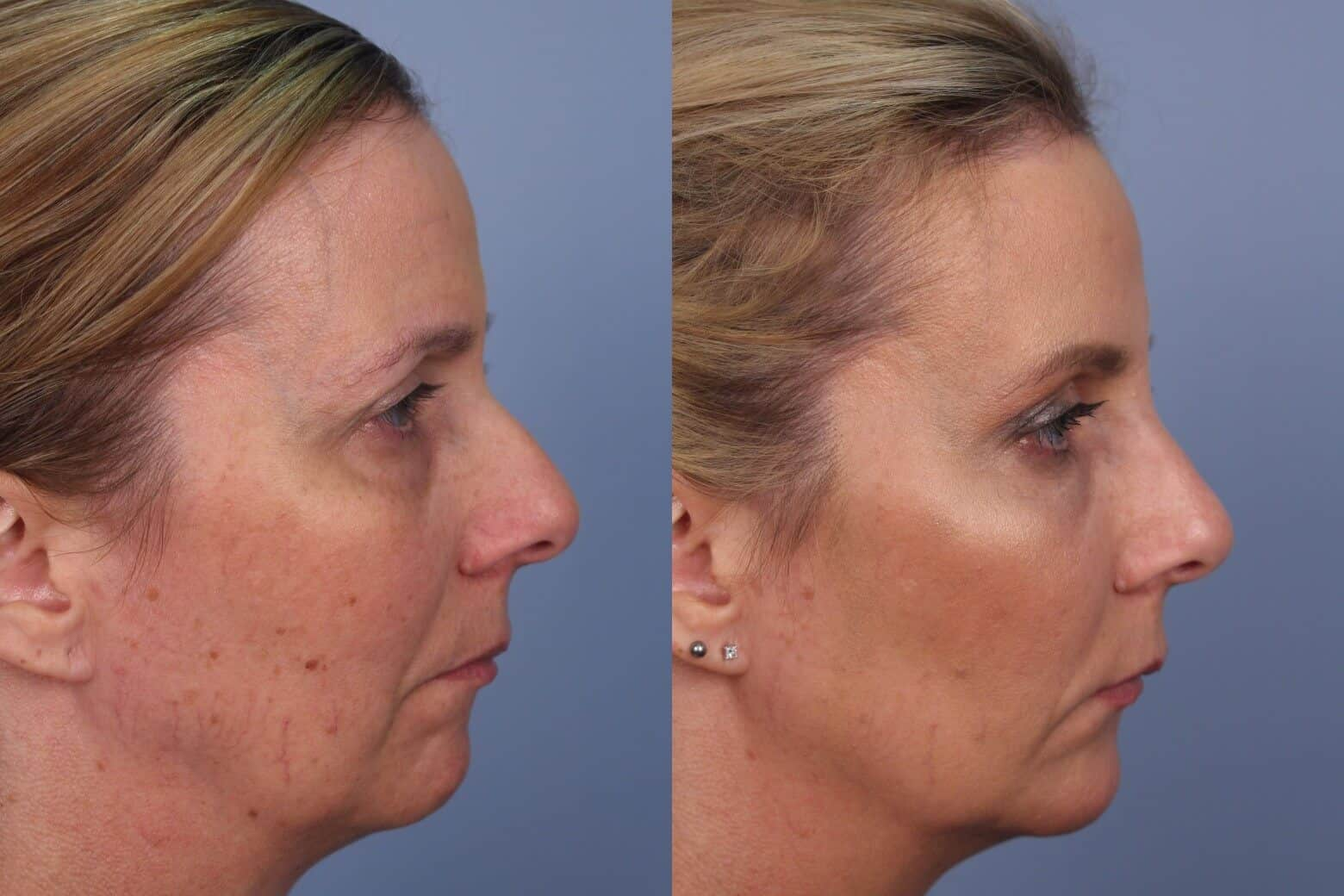 Fractional CO2 - Before and After Gallery - Patient Photo 44