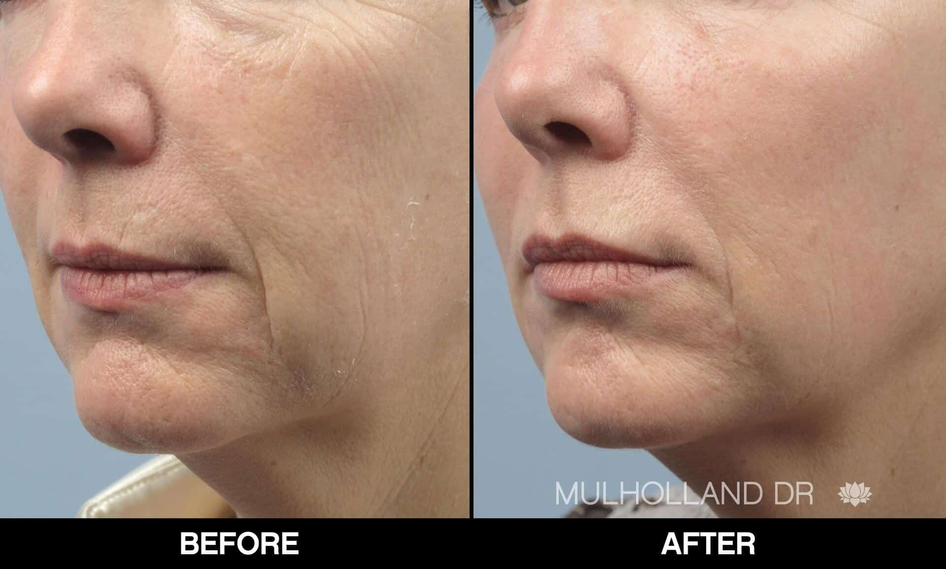 Fractional CO2 - Before and After Gallery - Patient Photo 53