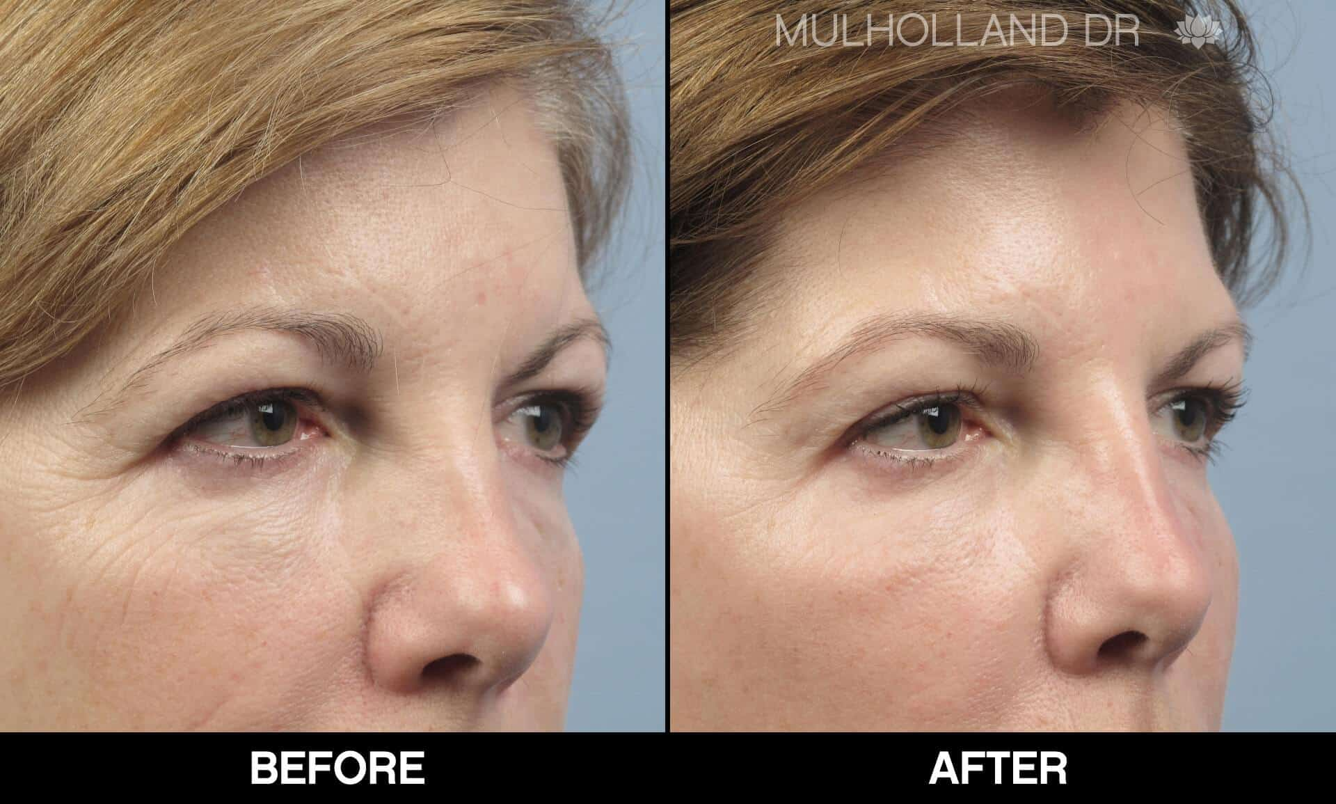 Fractional CO2 - Before and After Gallery - Patient Photo 58