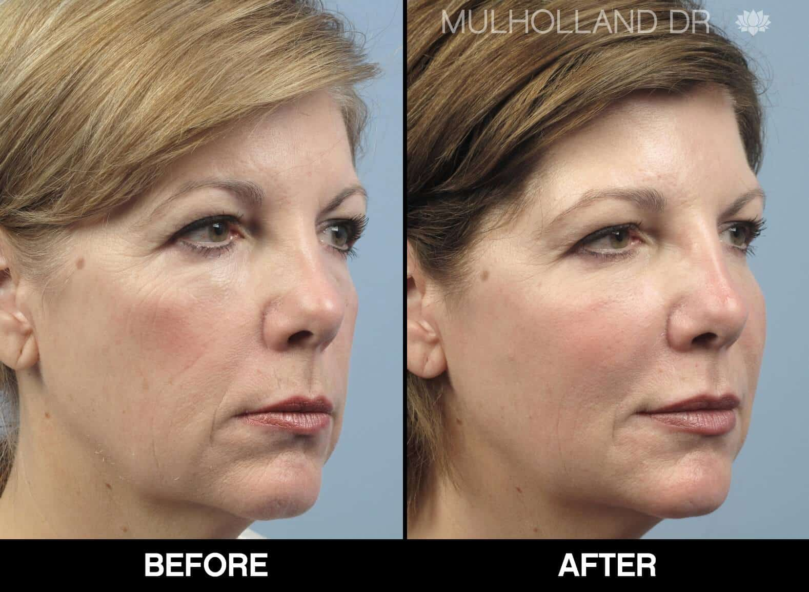 Fractional CO2 - Before and After Gallery - Patient Photo 60