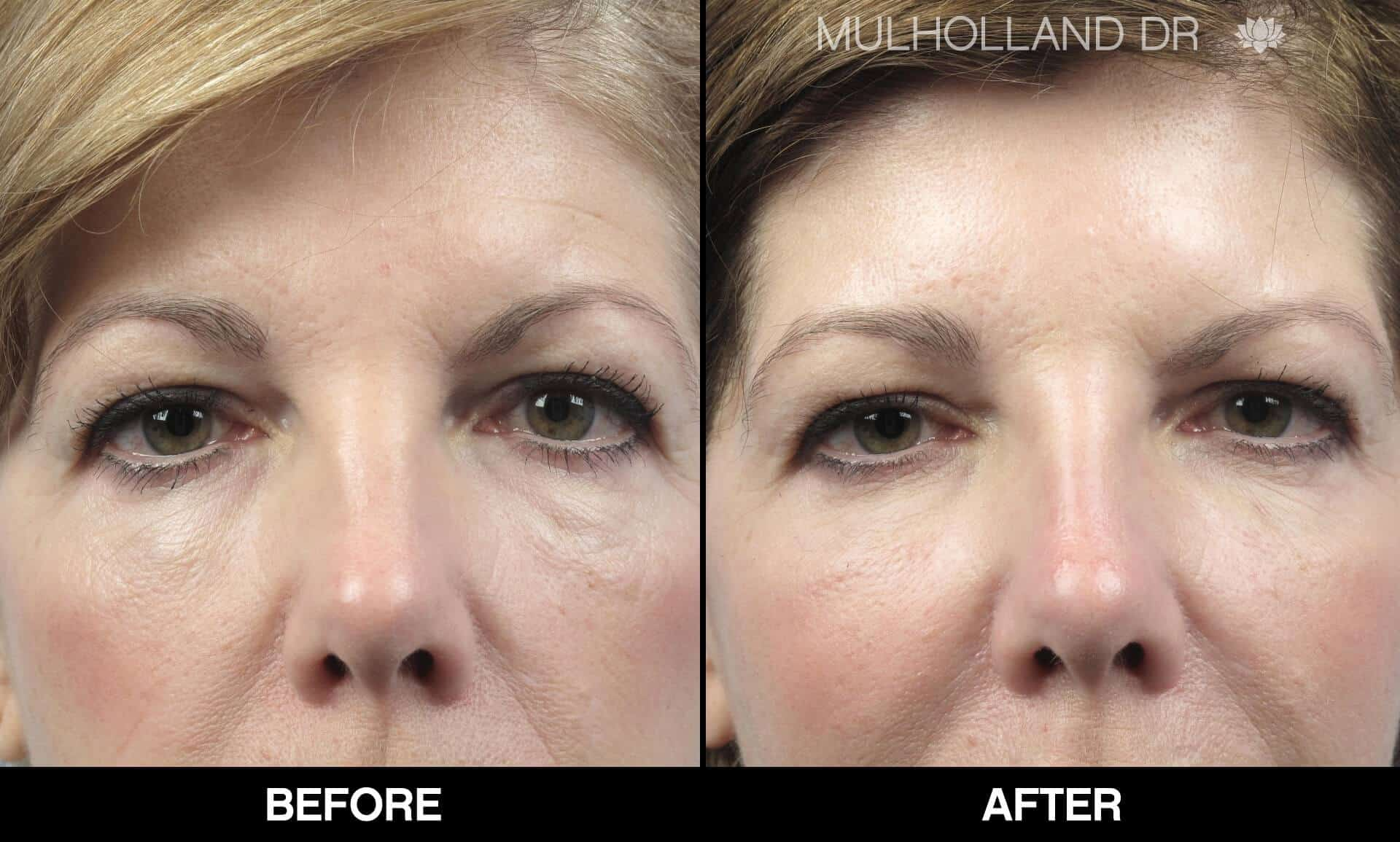 Fractional CO2 - Before and After Gallery - Patient Photo 61