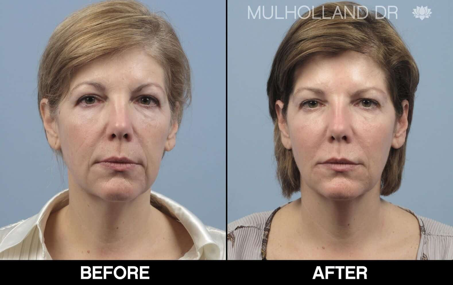 Fractional CO2 - Before and After Gallery - Patient Photo 62
