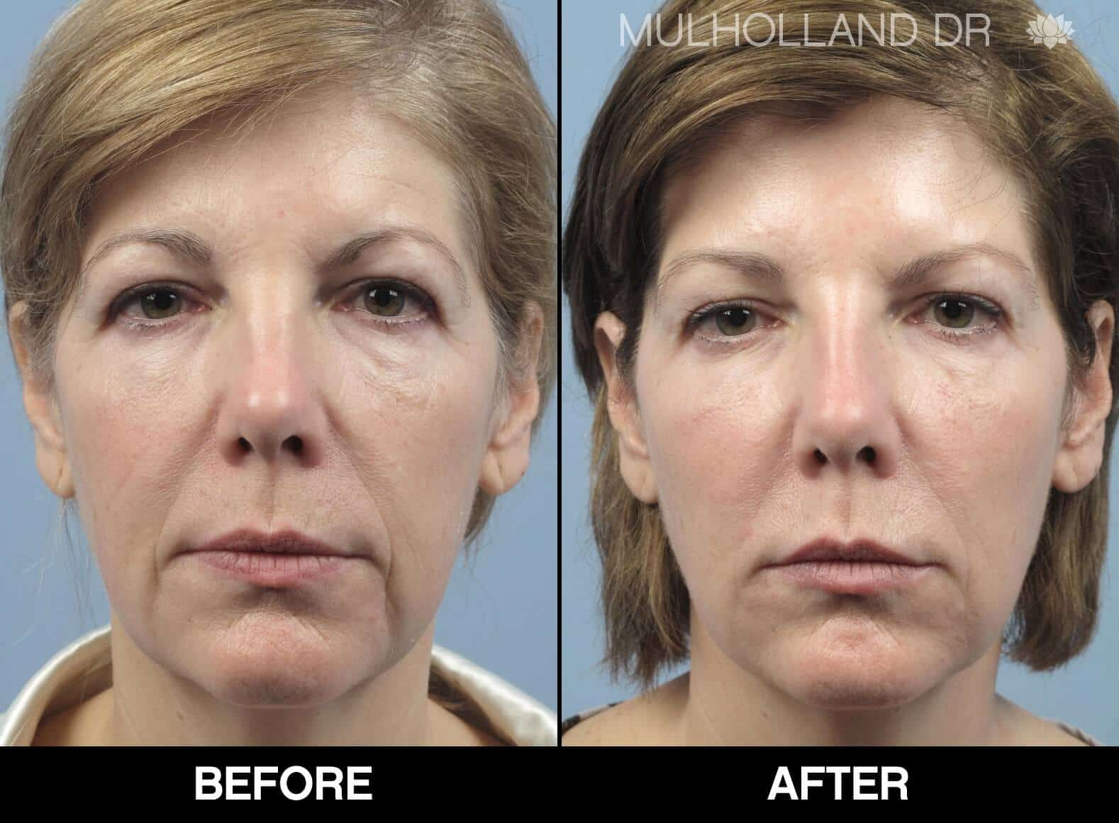 Fractional CO2 - Before and After Gallery - Patient Photo 63