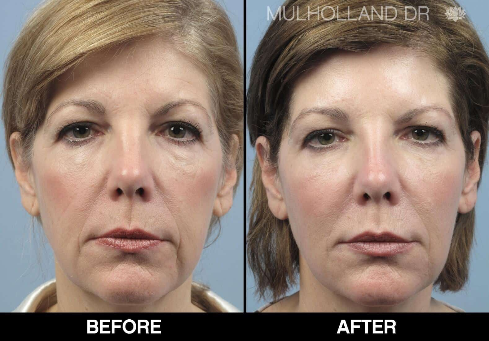 Fractional CO2 - Before and After Gallery - Patient Photo 64
