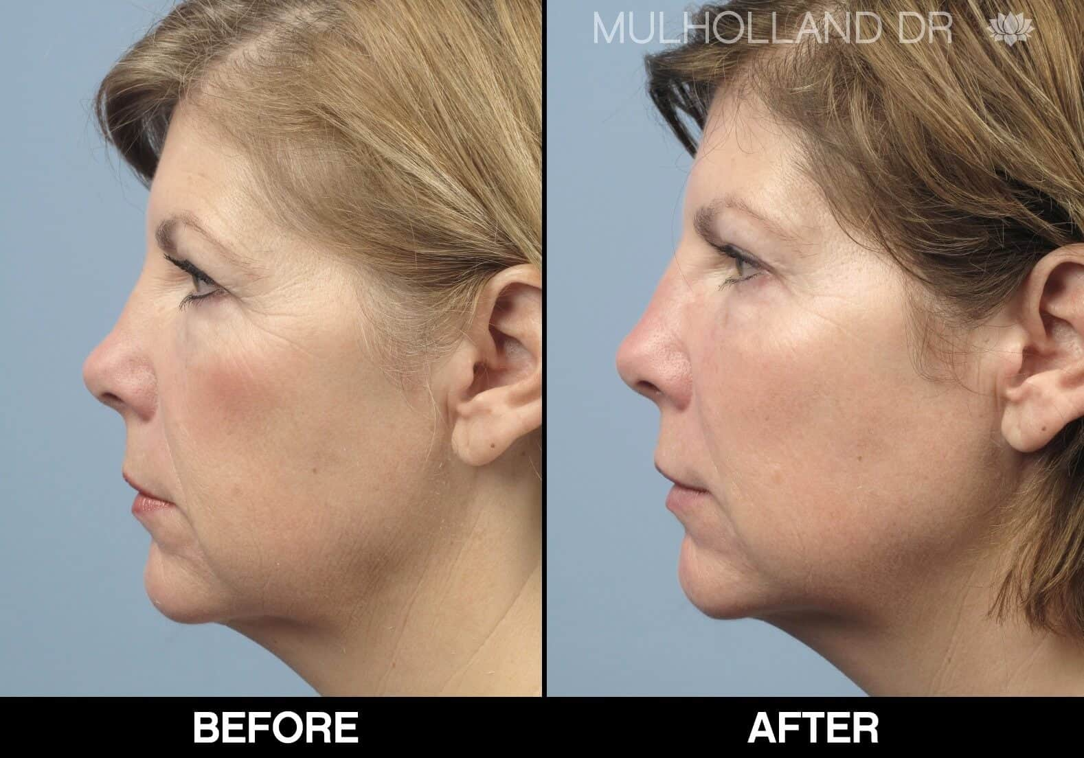 Fractional CO2 - Before and After Gallery - Patient Photo 66
