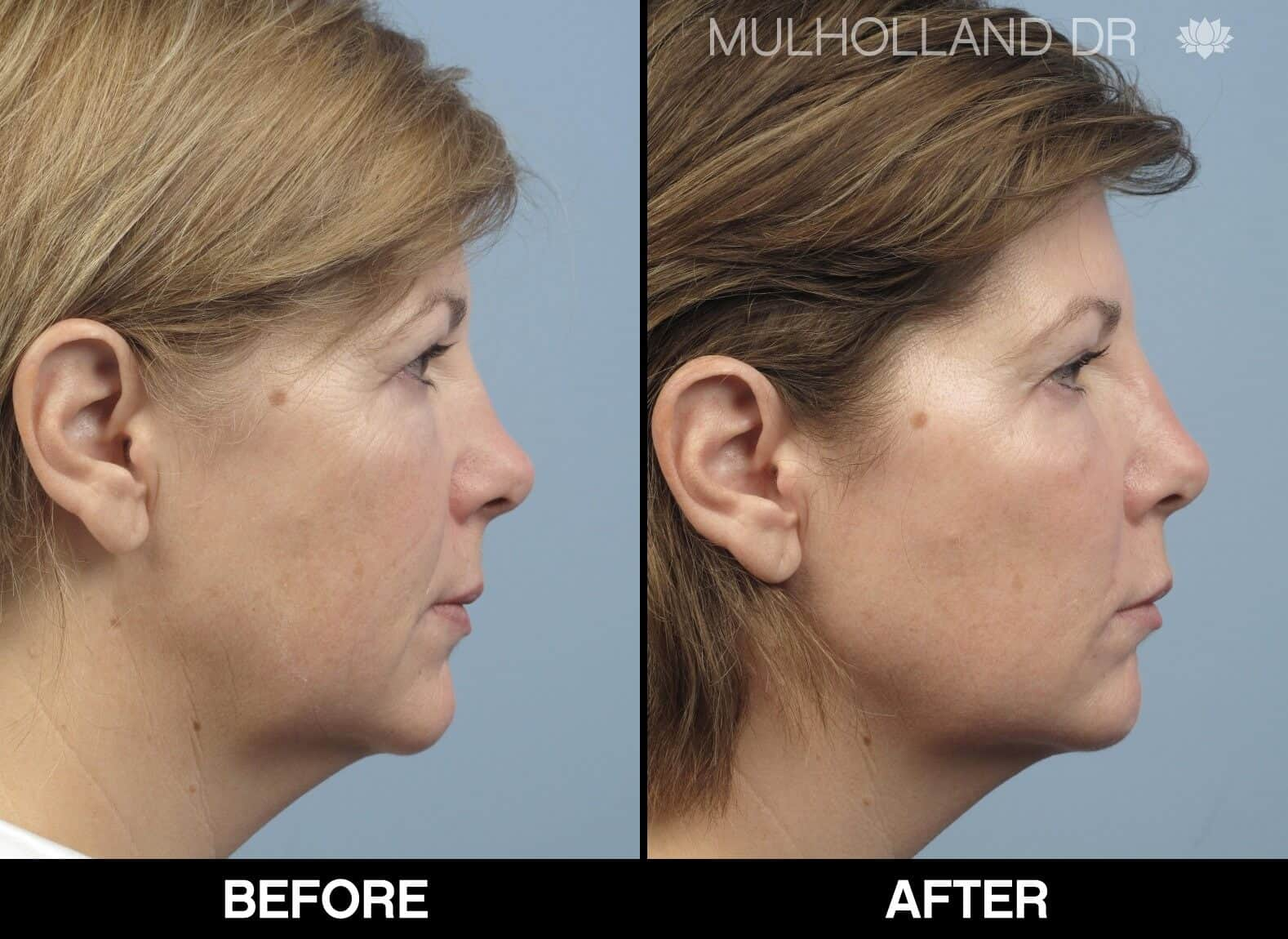 Fractional CO2 - Before and After Gallery - Patient Photo 68