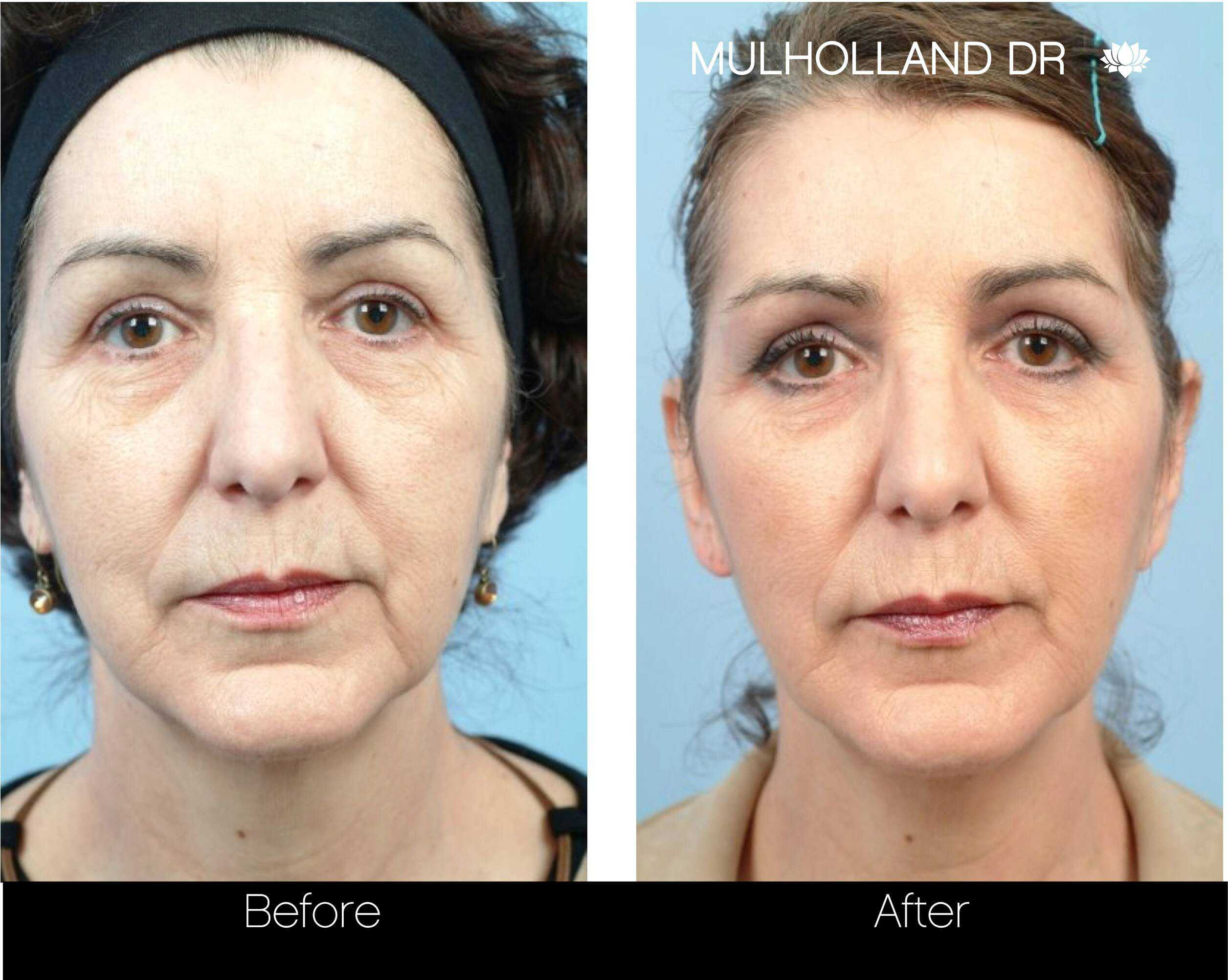 Fractional CO2 - Before and After Gallery - Patient Photo 69