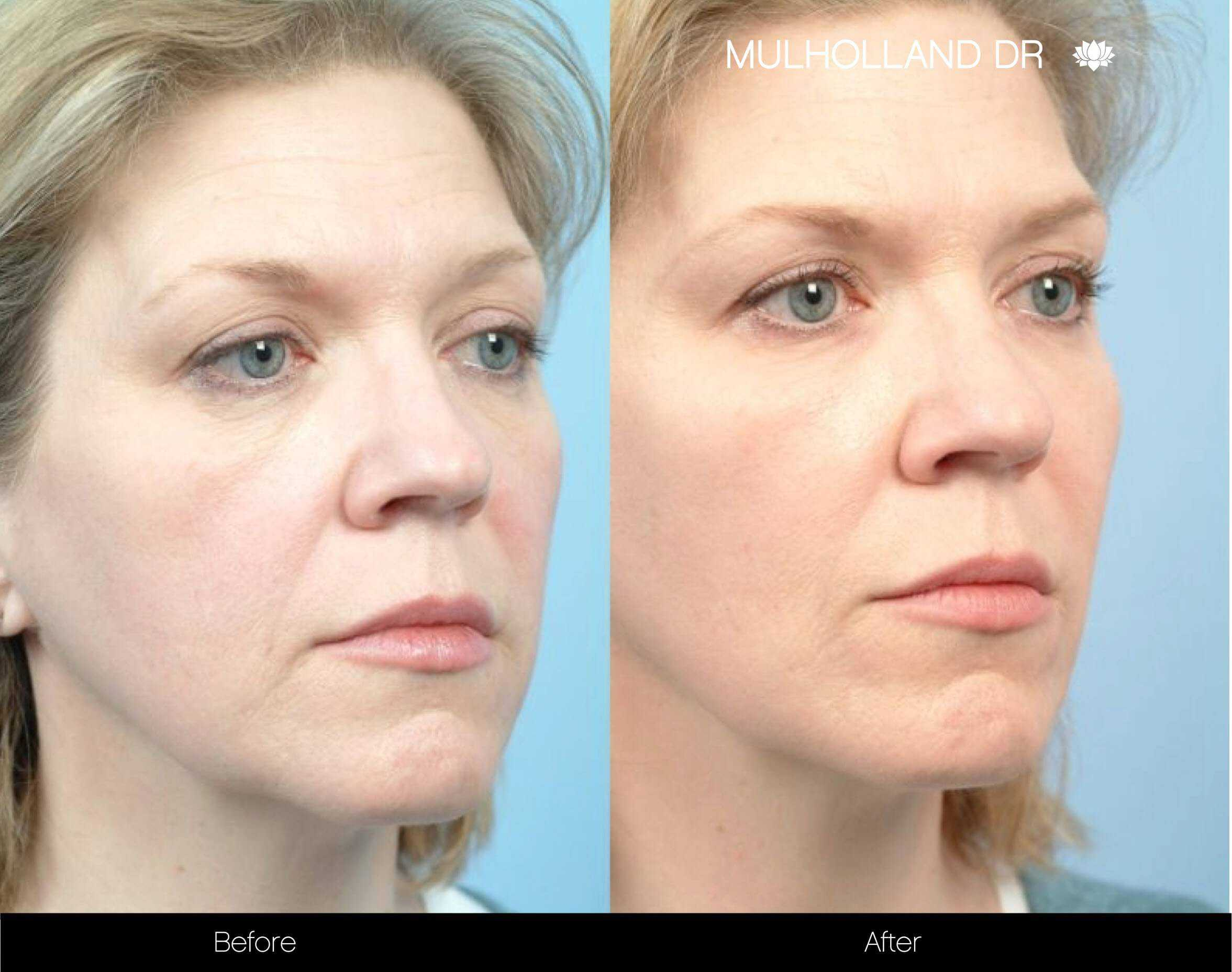 Fractional CO2 - Before and After Gallery - Patient Photo 72