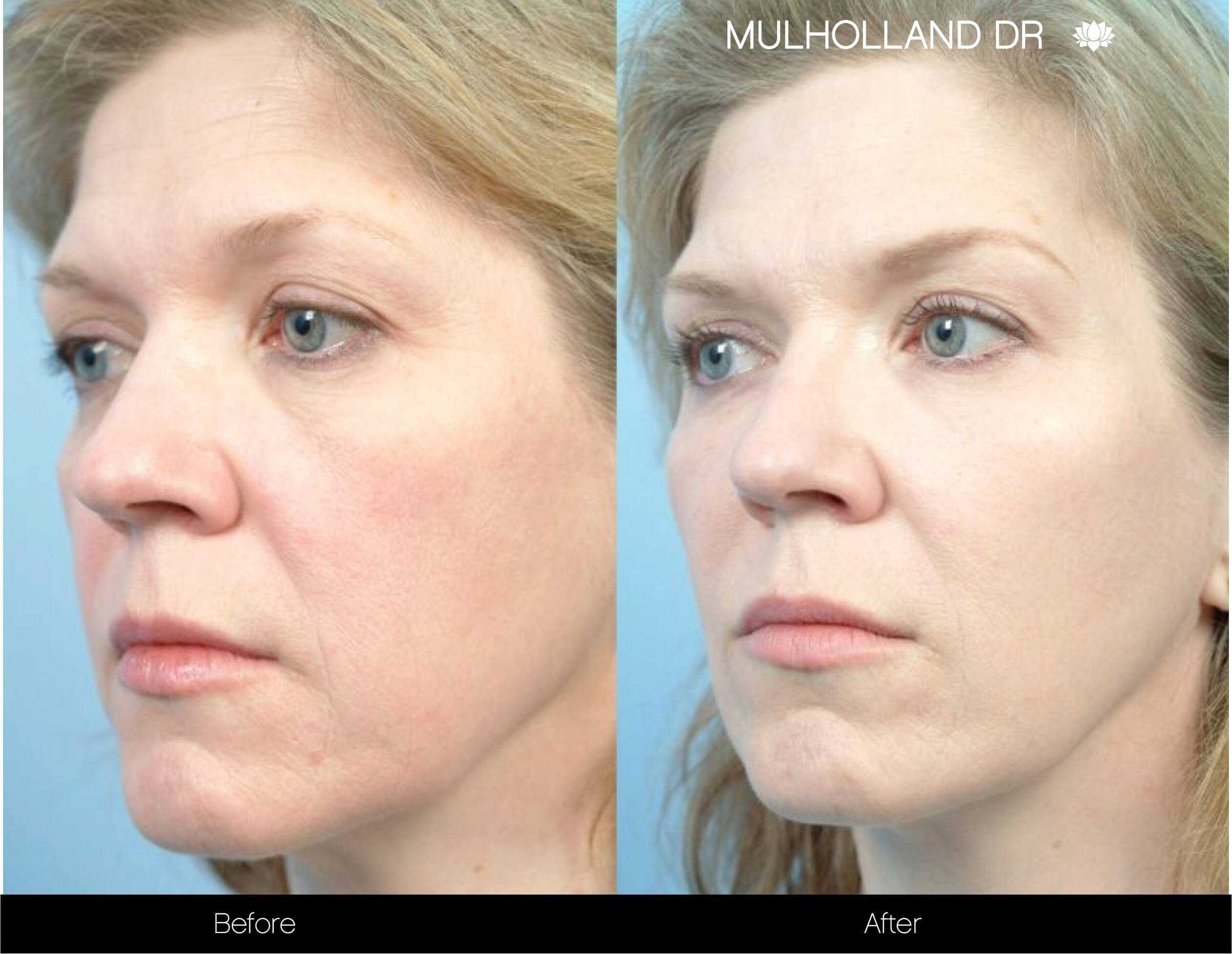 Fractional CO2 - Before and After Gallery - Patient Photo 73