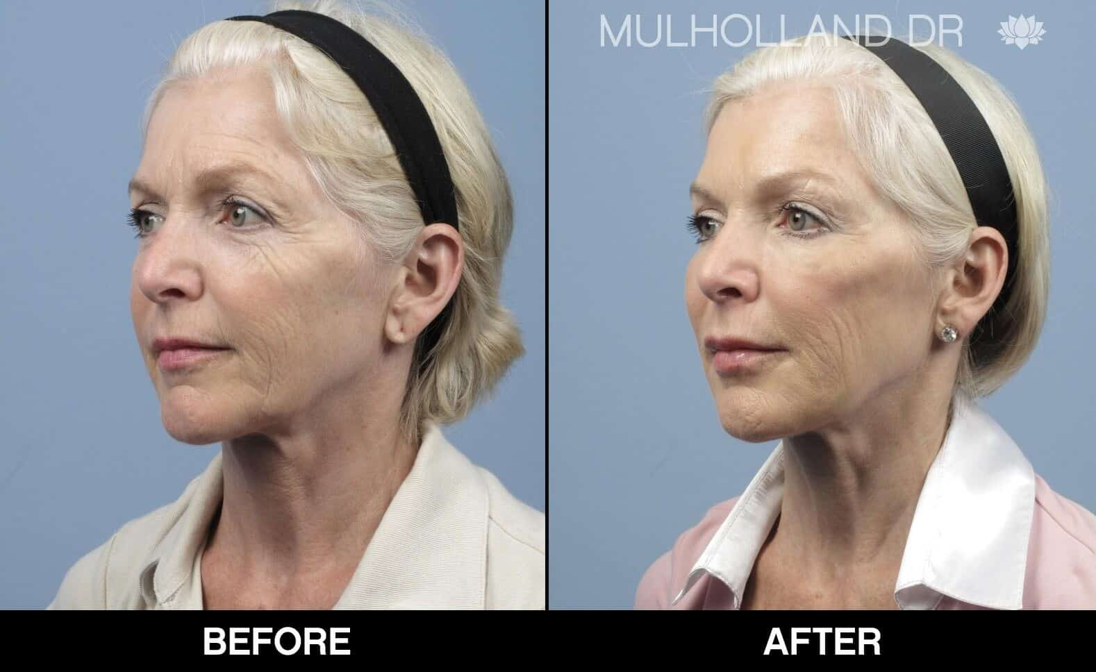 Fractional Erbium Laser - Before and After Gallery - Patient Photo 15