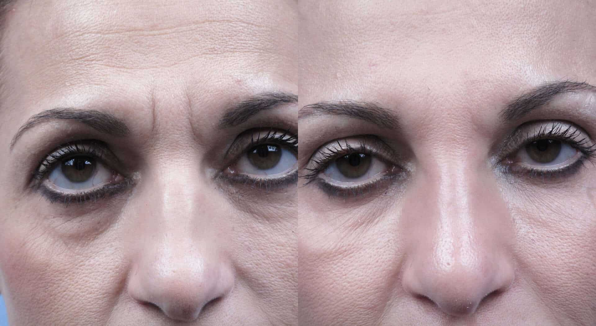 Fractional Erbium Laser - Before and After Gallery - Patient Photo 19