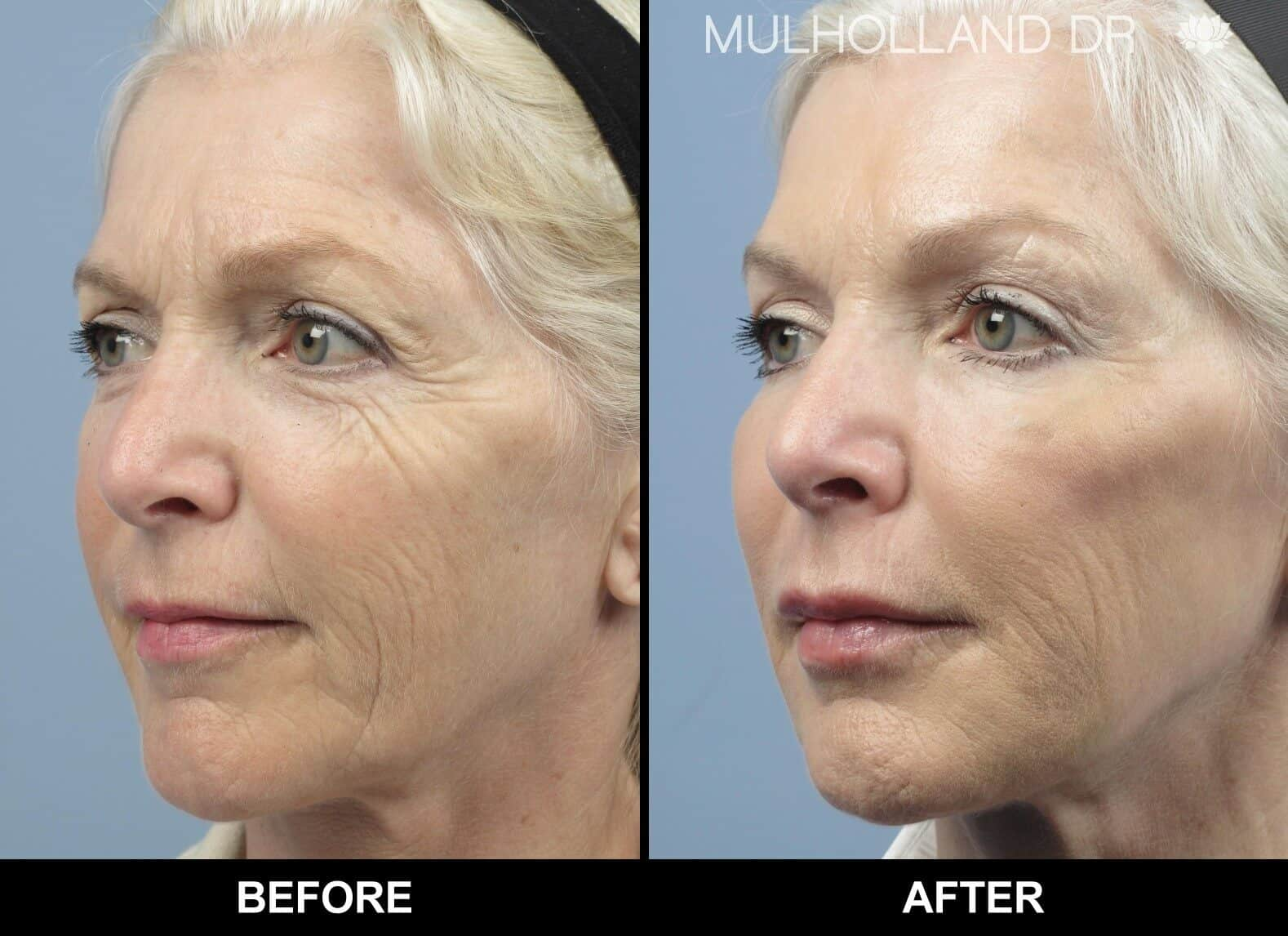Fractional Erbium Laser - Before and After Gallery - Patient Photo 2