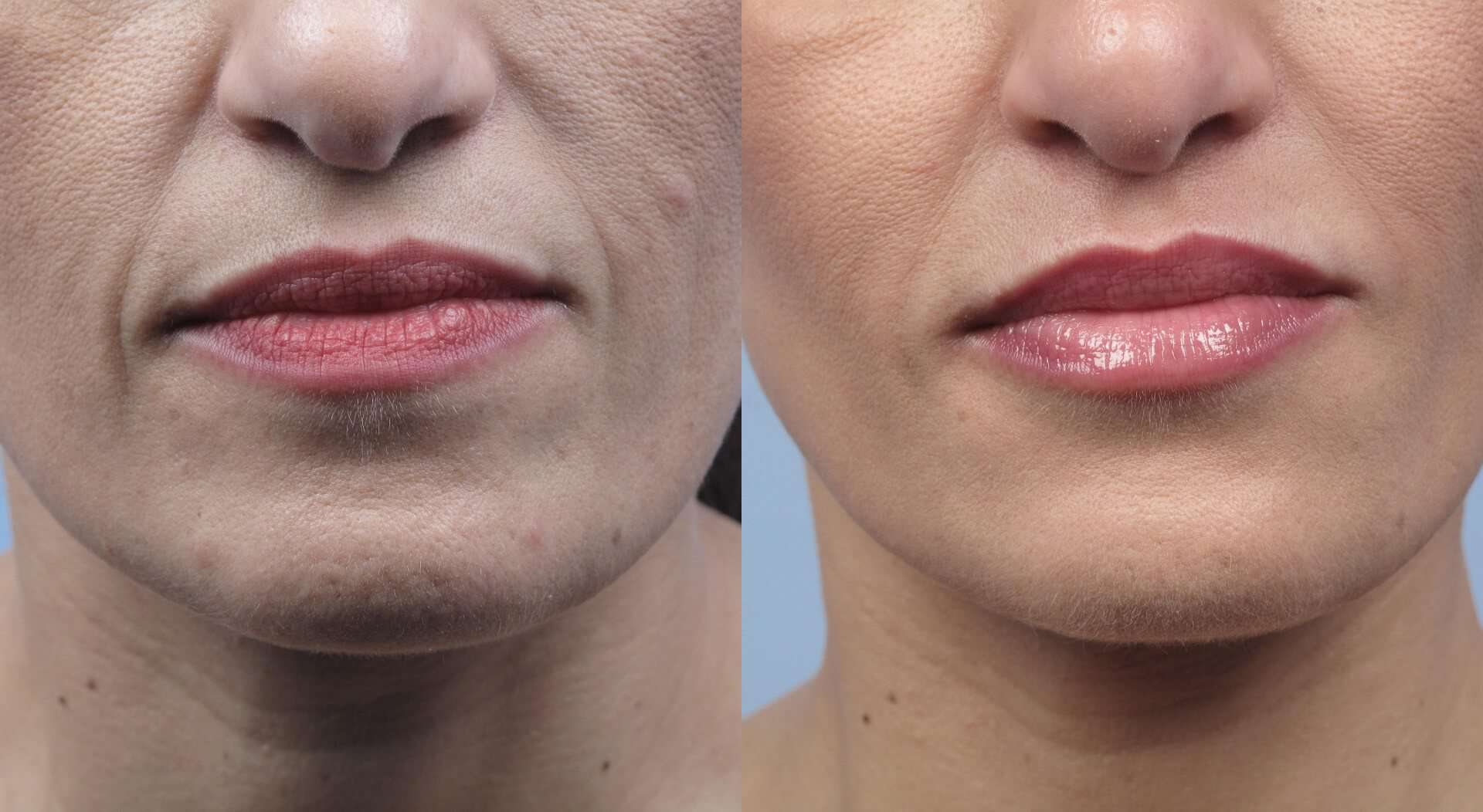 Fractional Erbium Laser - Before and After Gallery - Patient Photo 20
