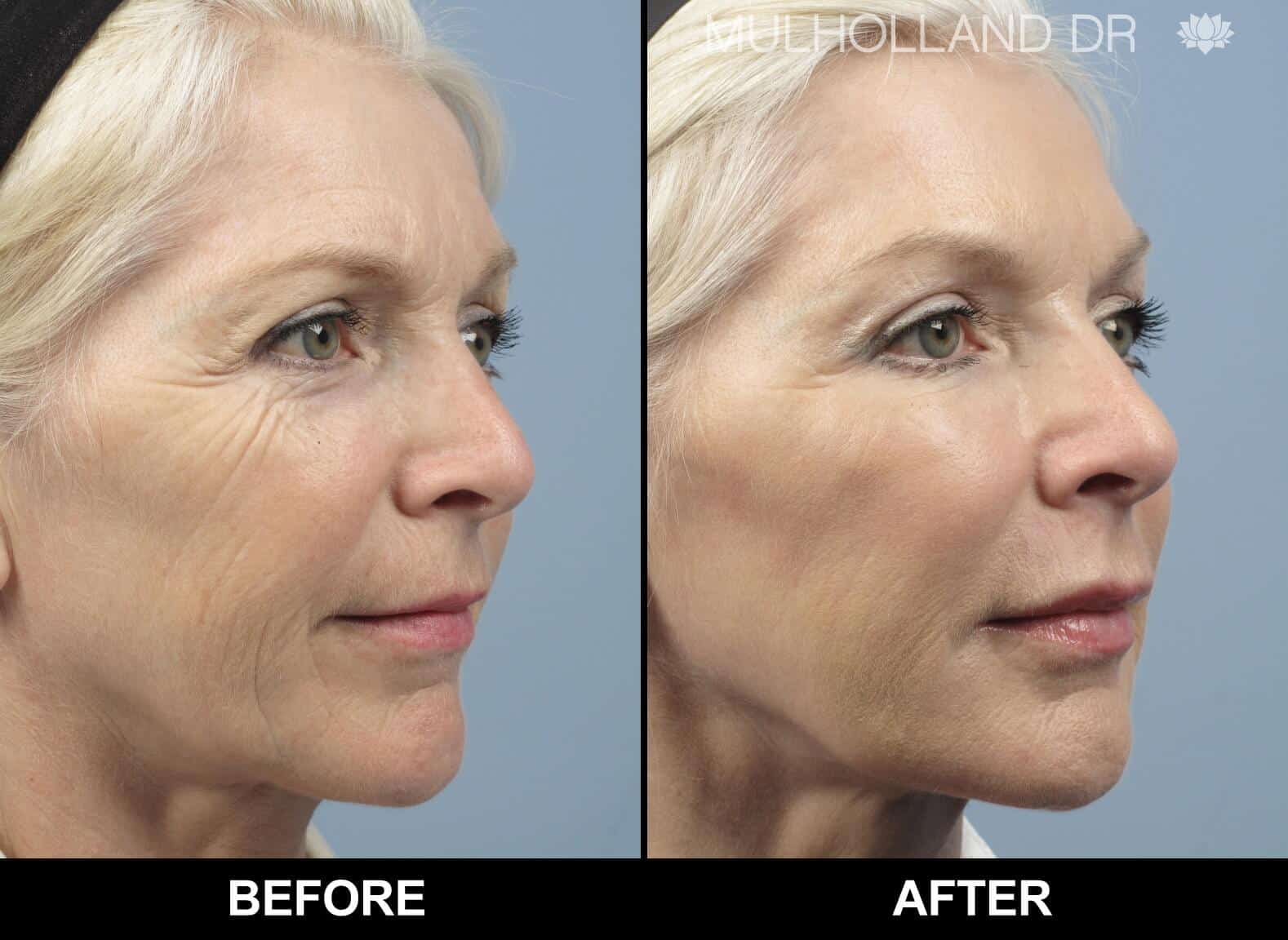 Fractional Erbium Laser - Before and After Gallery - Patient Photo 3