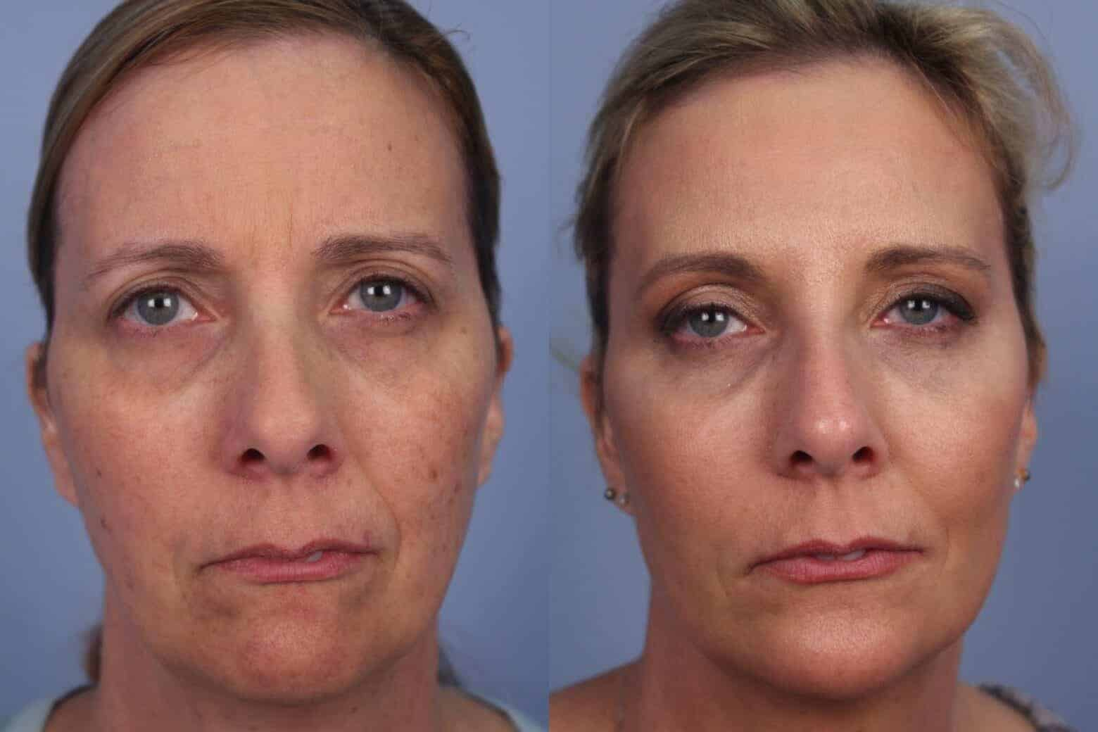 Fractional Erbium Laser - Before and After Gallery - Patient Photo 32