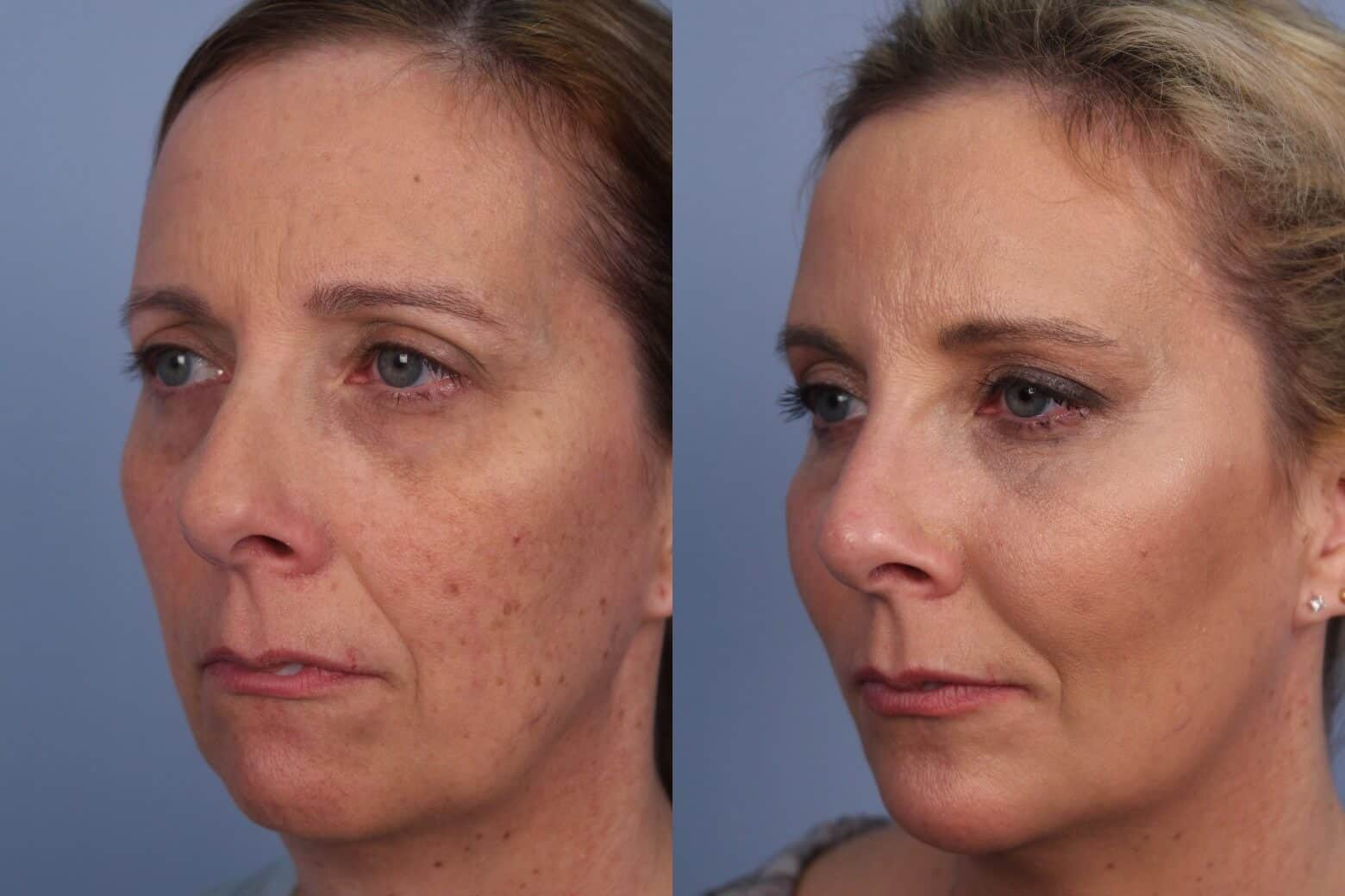 Fractional Erbium Laser - Before and After Gallery - Patient Photo 36
