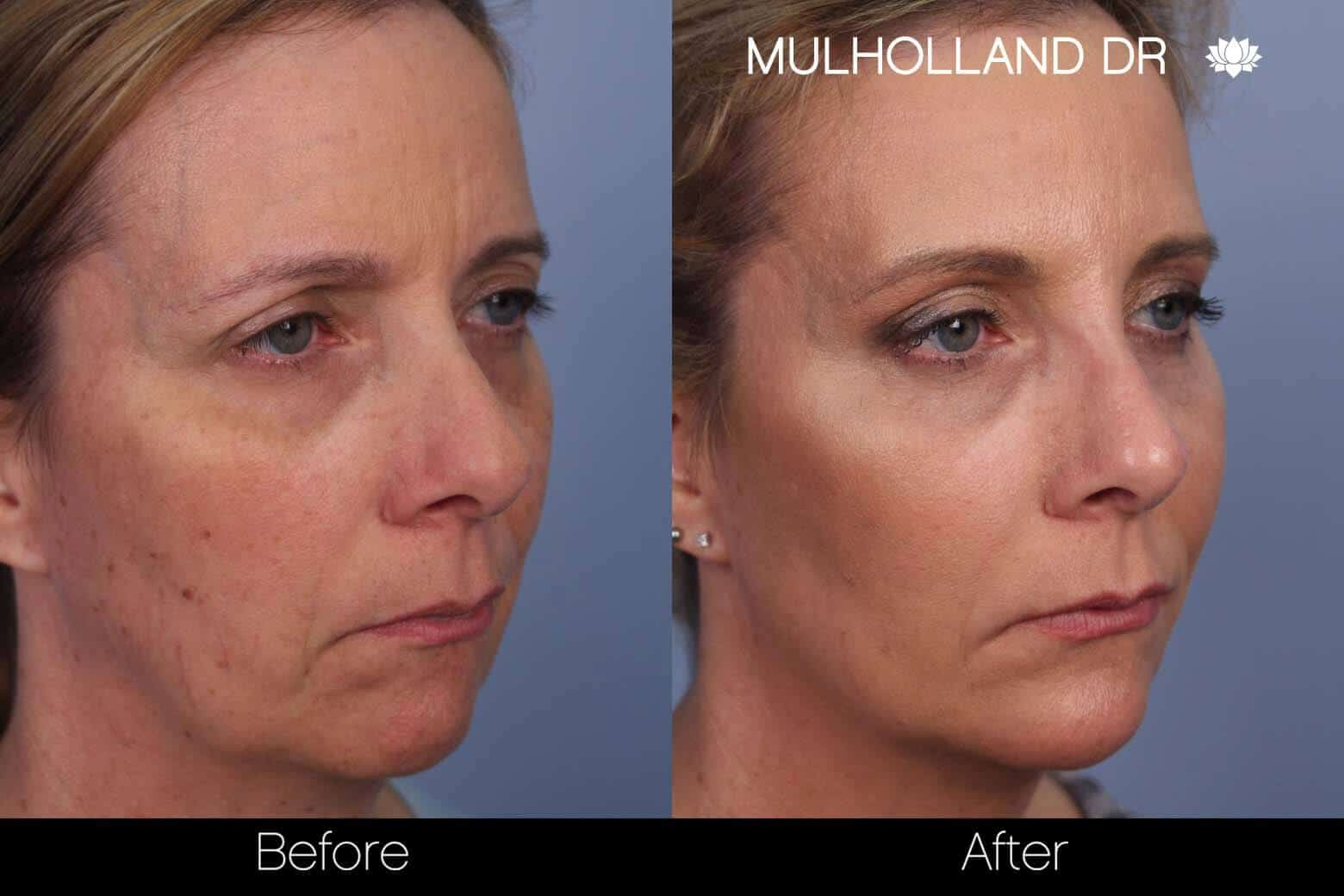 Fractional Erbium Laser - Before and After Gallery - Patient Photo 37
