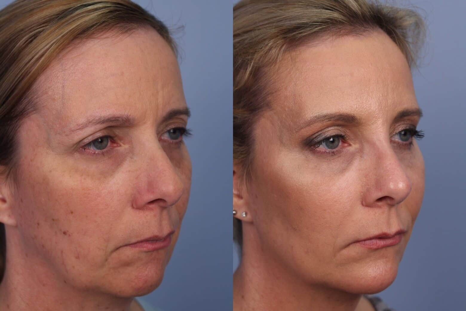 Fractional Erbium Laser - Before and After Gallery - Patient Photo 38