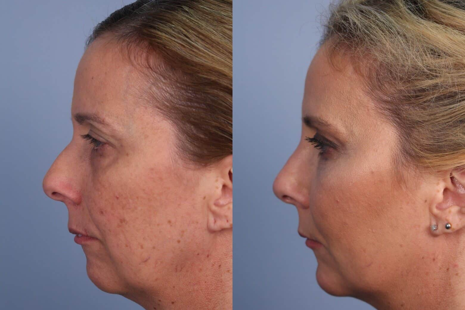 Fractional Erbium Laser - Before and After Gallery - Patient Photo 42