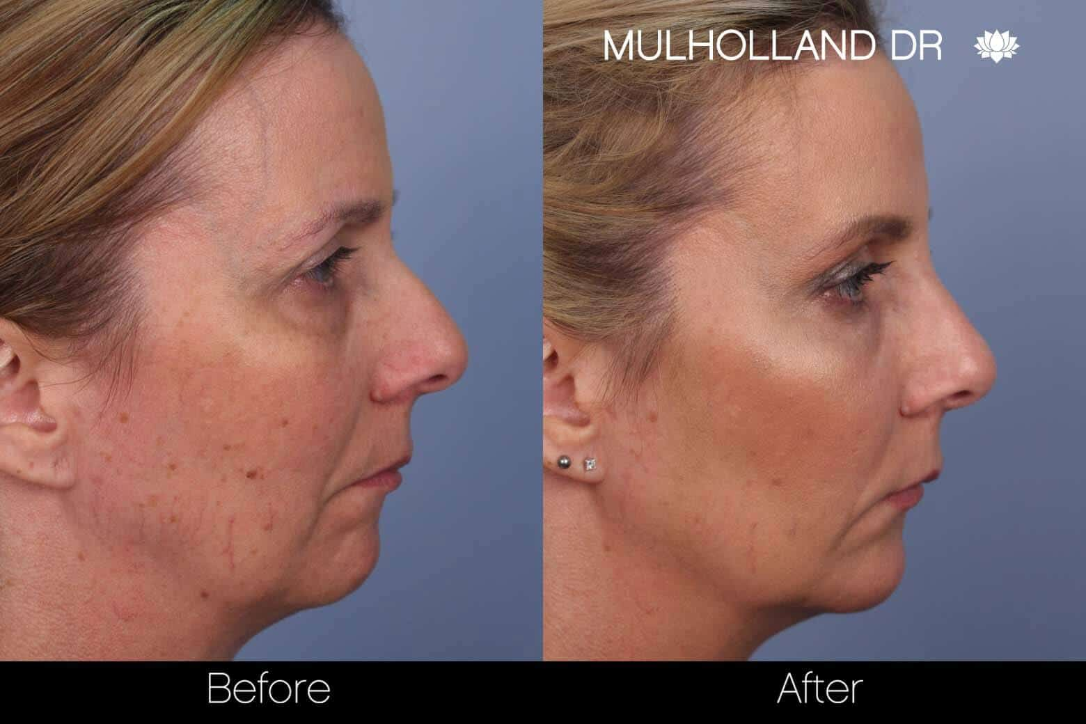 Fractional Erbium Laser - Before and After Gallery - Patient Photo 43