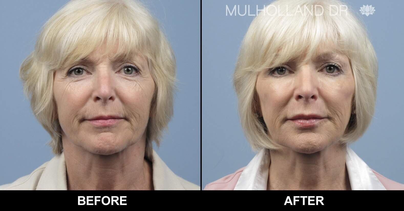 Fractional Erbium Laser - Before and After Gallery - Patient Photo 8