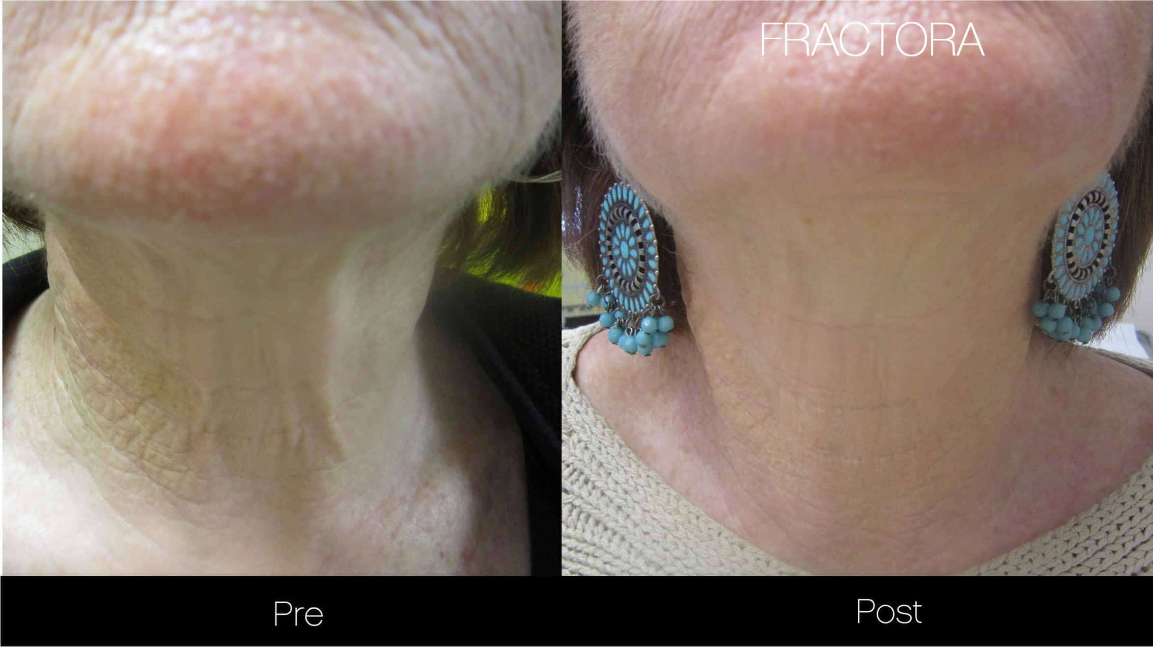 Fractora - Before and After Gallery - Patient Photo 10
