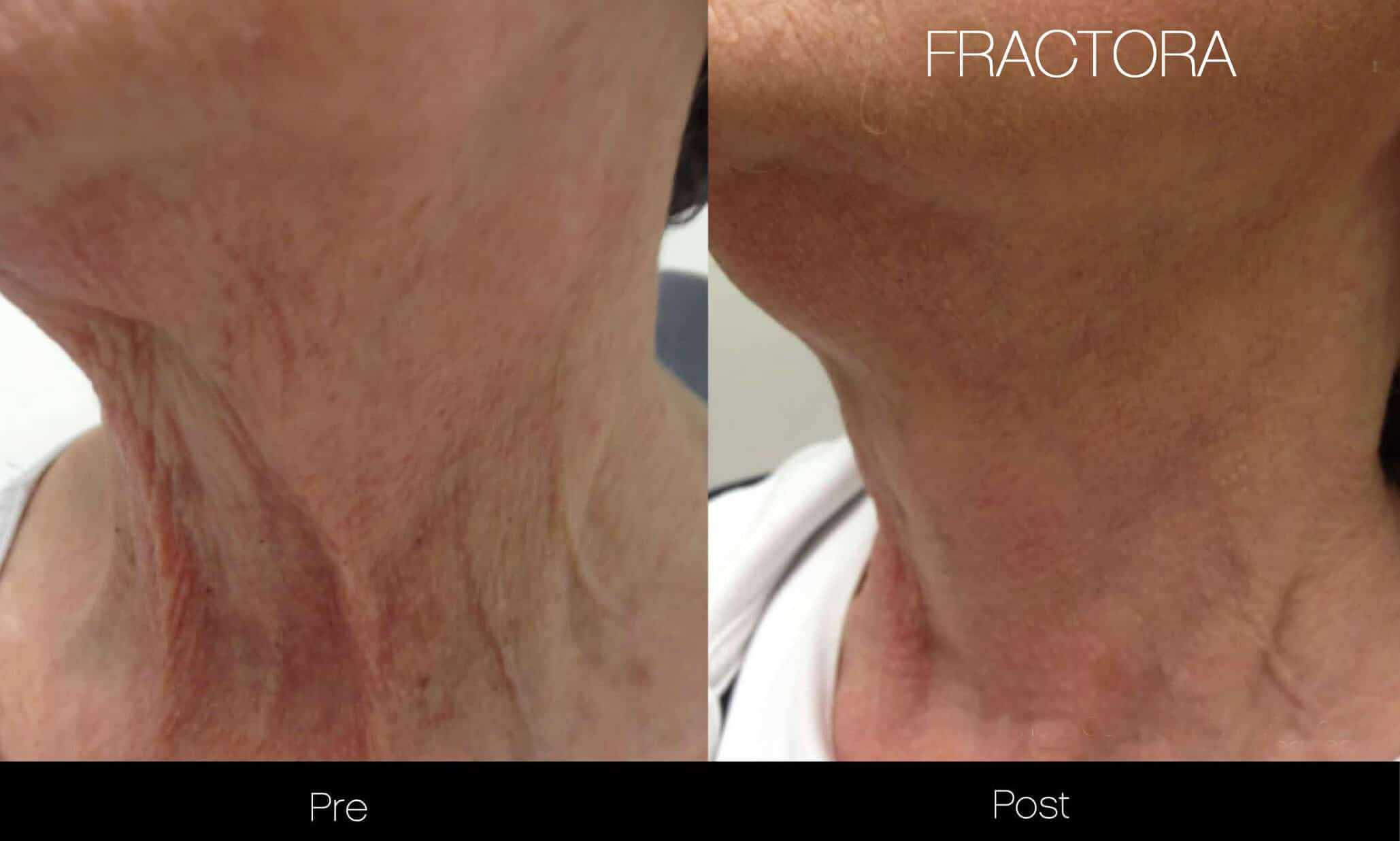 Fractora - Before and After Gallery - Patient Photo 11