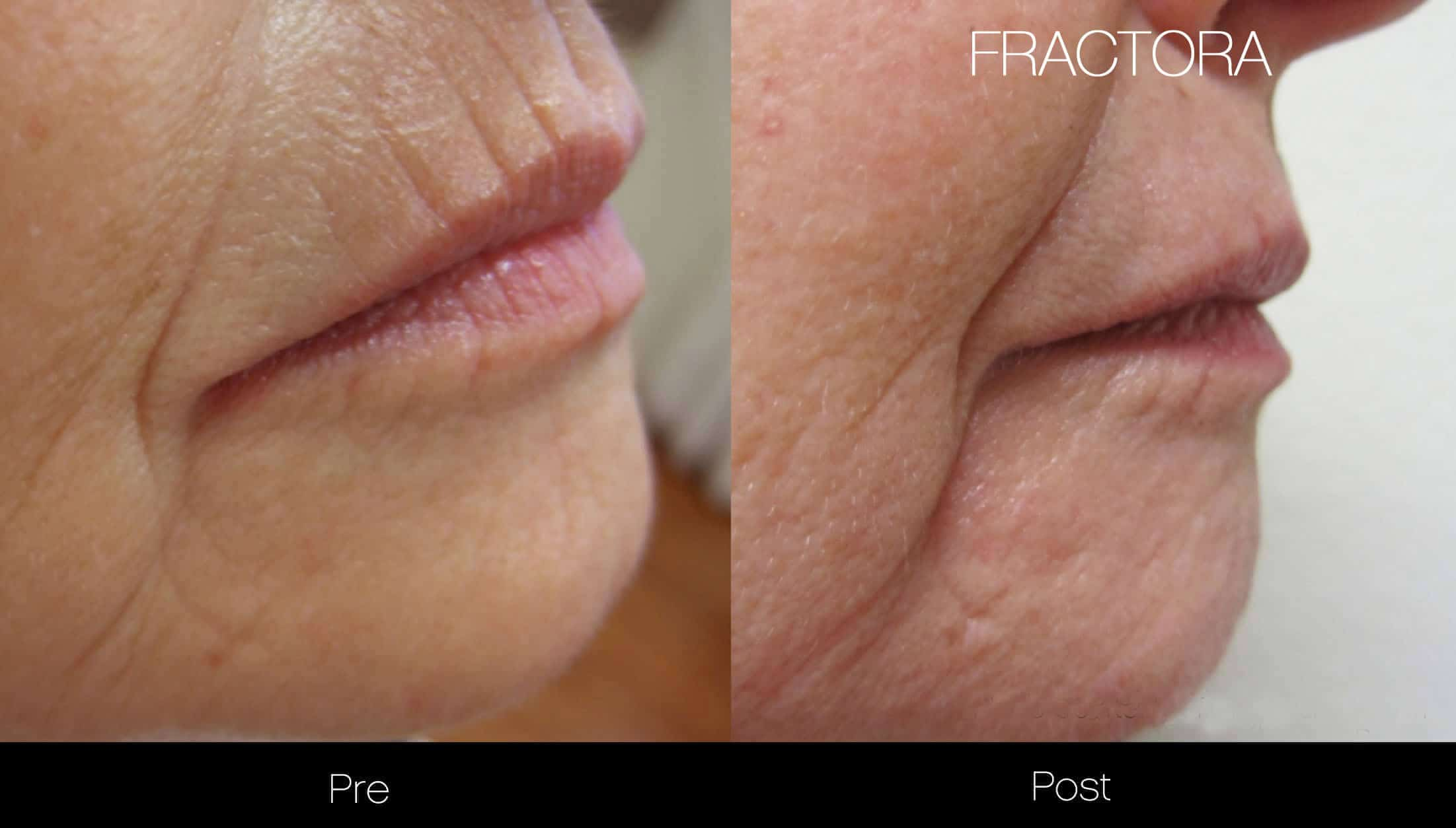 Fractora - Before and After Gallery - Patient Photo 13
