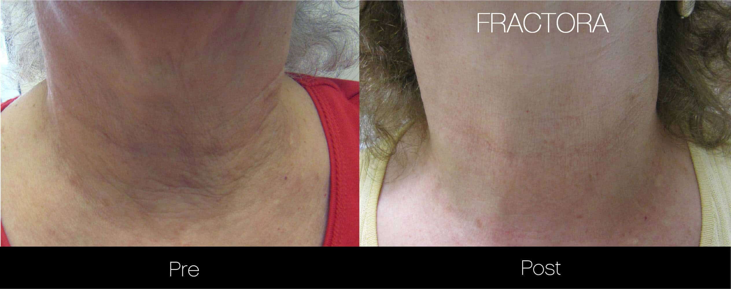Fractora - Before and After Gallery - Patient Photo 9