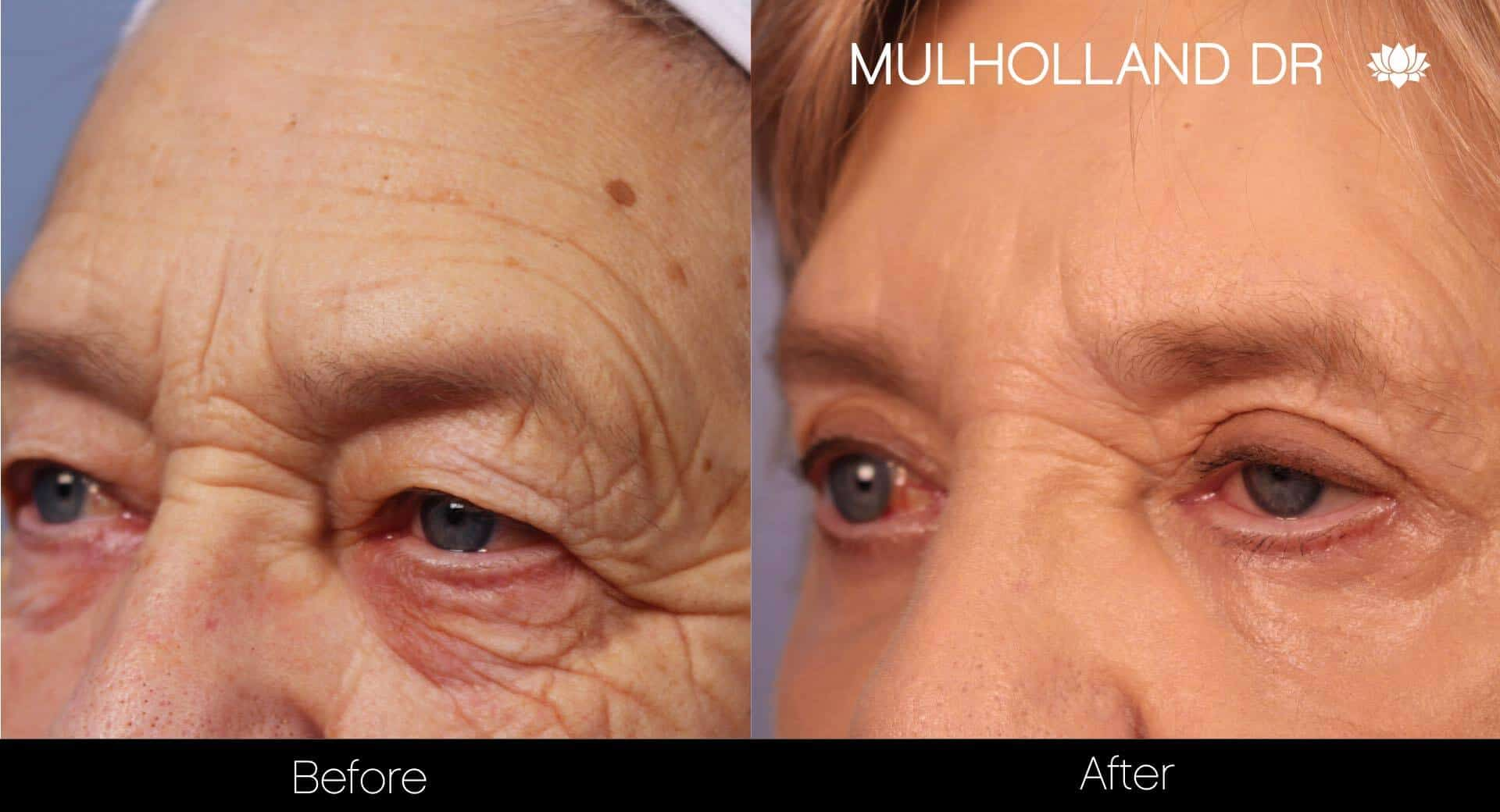 Blepharoplasty - Before and After Gallery – Photo 10