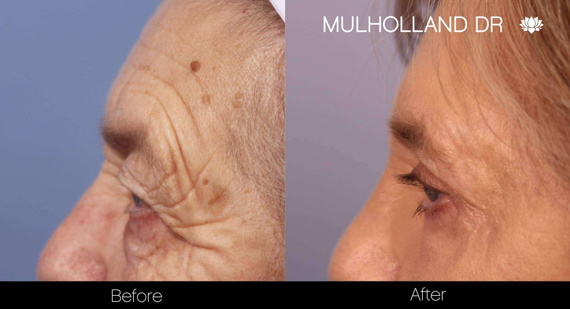 Blepharoplasty - Before and After Gallery – Photo 11