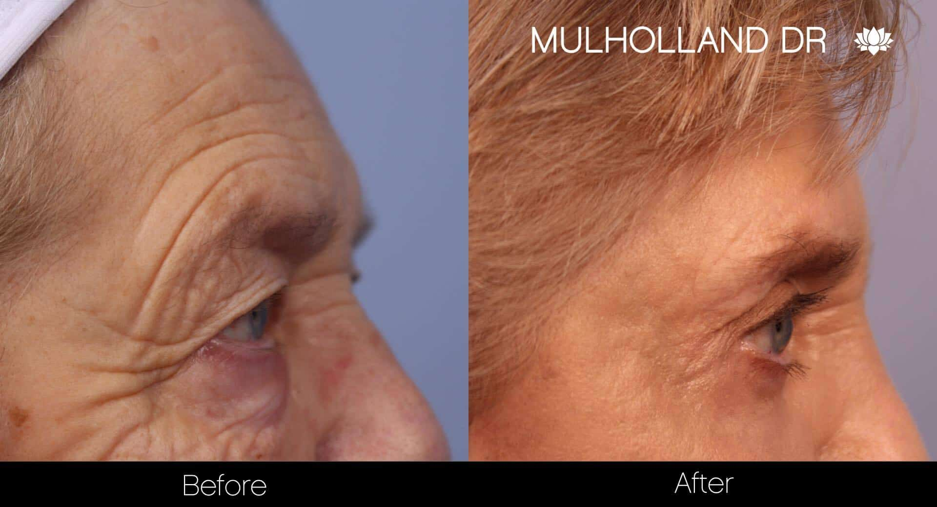 Blepharoplasty - Before and After Gallery – Photo 13