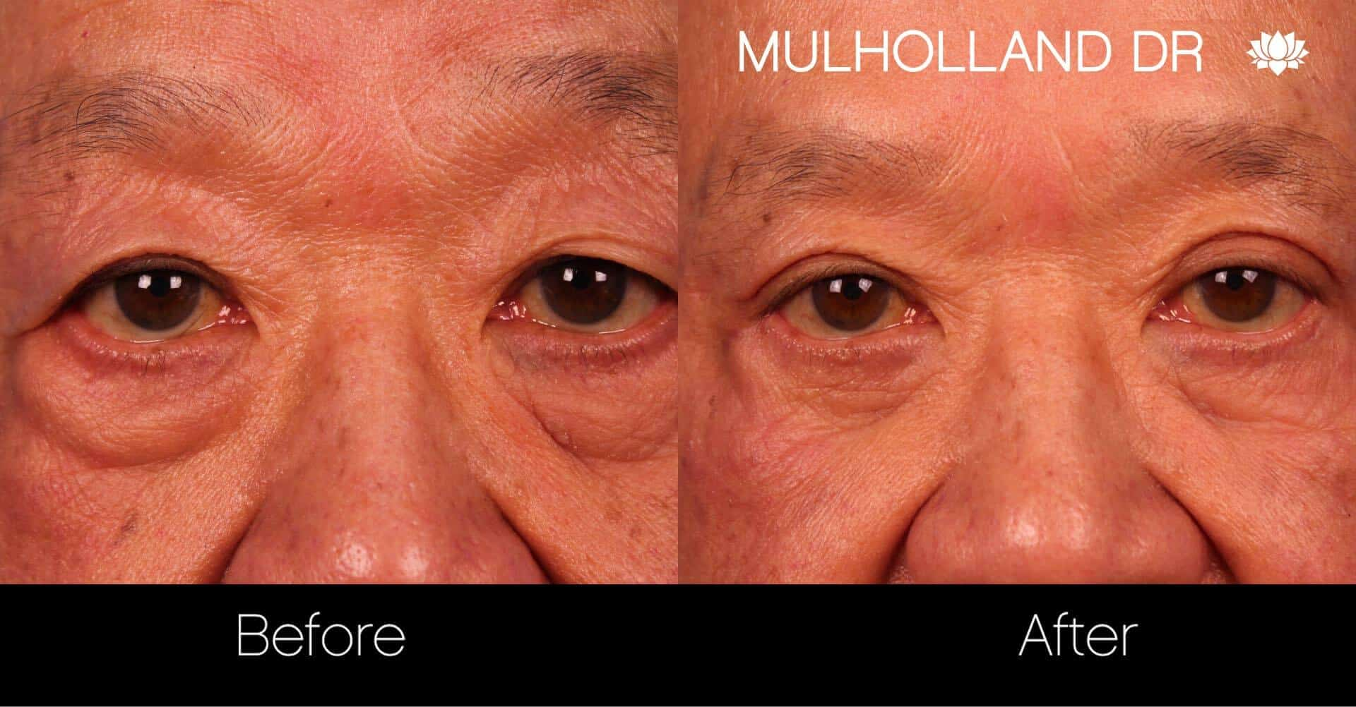 Blepharoplasty - Before and After Gallery – Photo 14