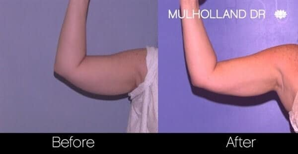 Arm Lift - Before and After Gallery – Photo 15