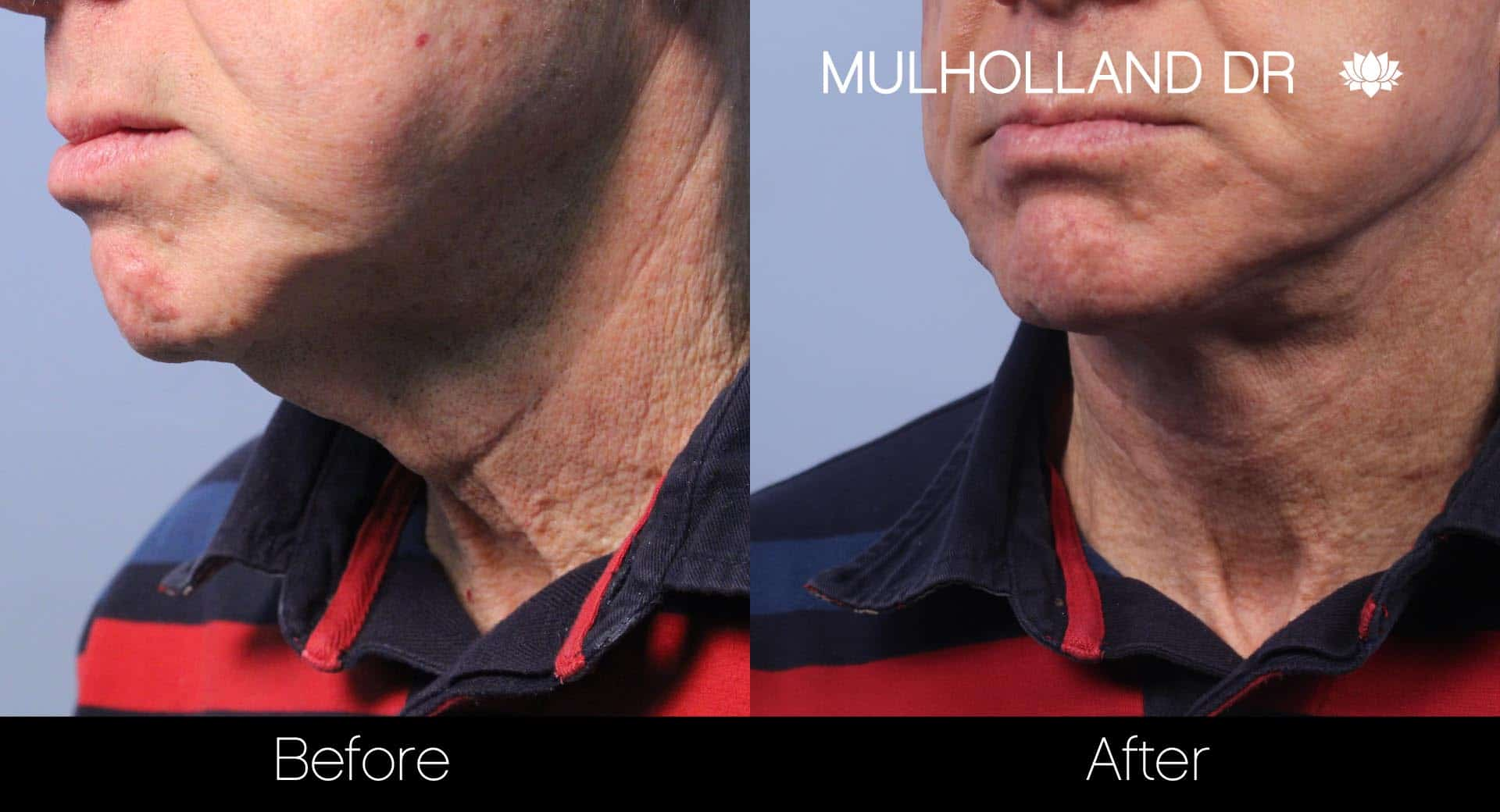 Male Double Chin - Before and After Gallery – Photo 16